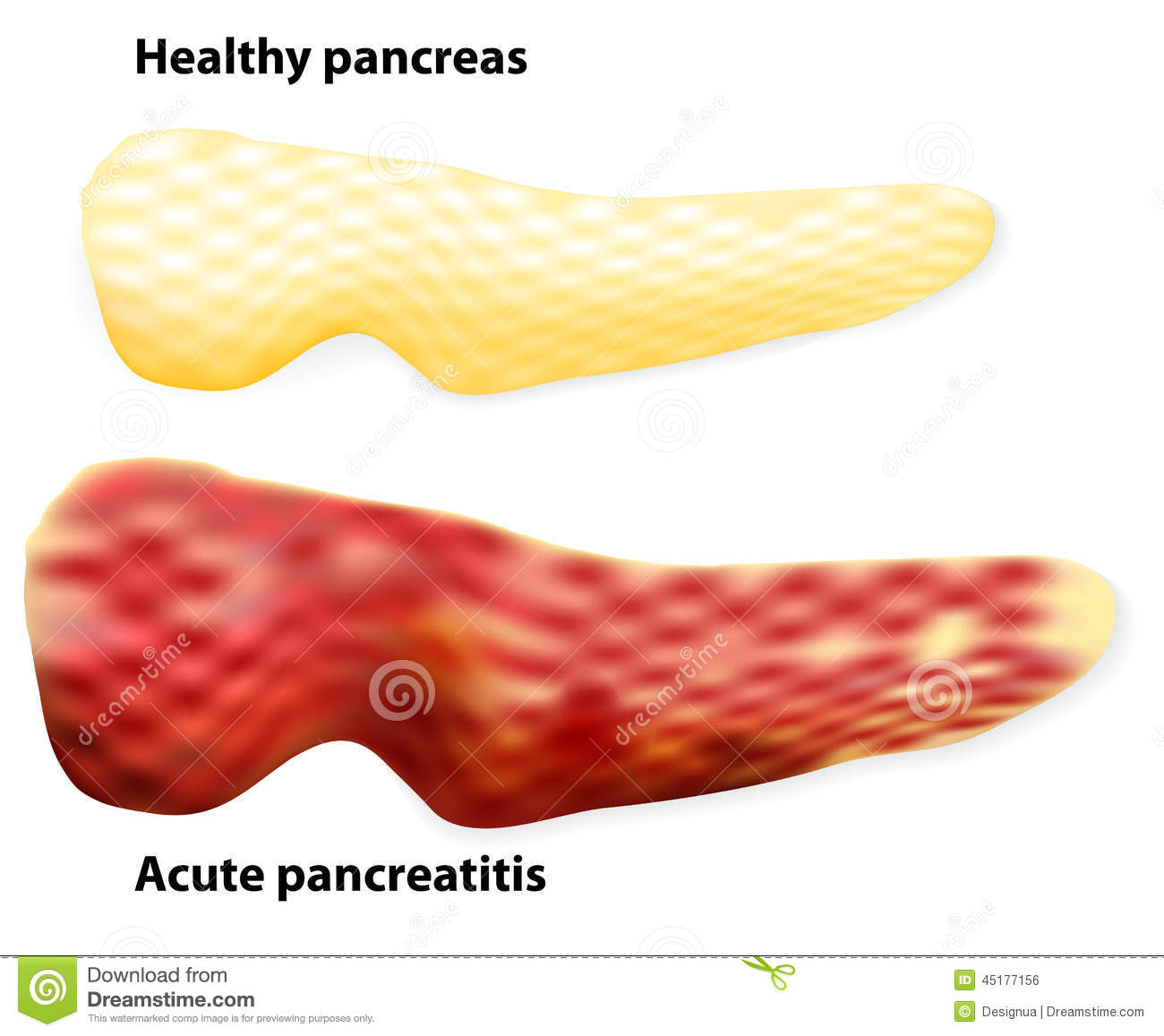 pancreatitis  the differences between healthy pancreas and infla stock vector