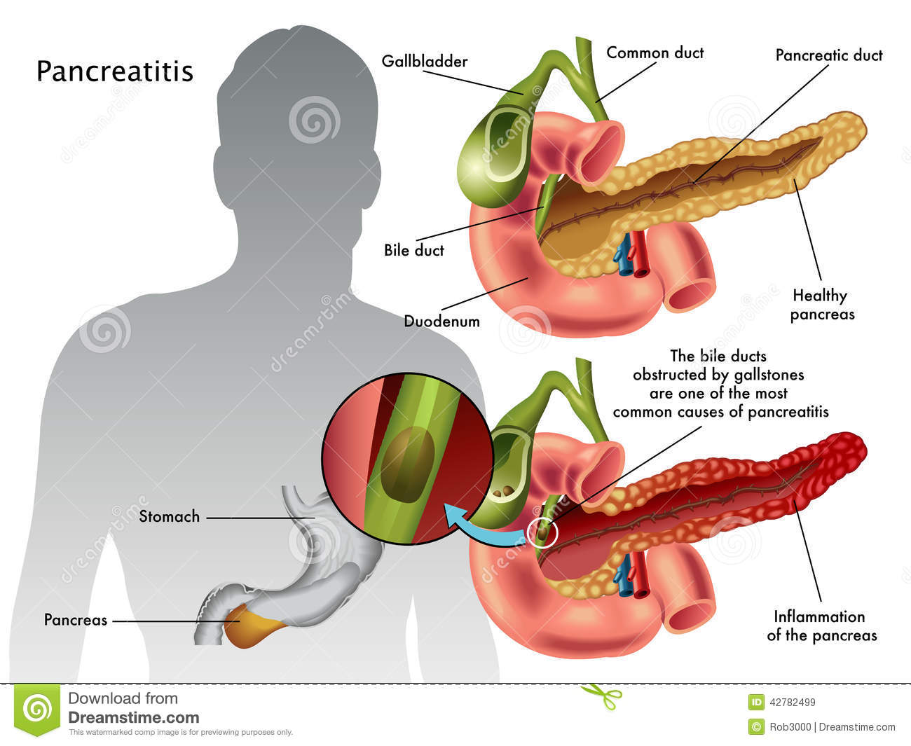 symptoms and symptoms of acute pancreatitis The first sign of acute pancreatitis is a pain in the upper abdomen that can radiate to the back the pain is often severe and may last for several days other symptoms of pancreatitis include.