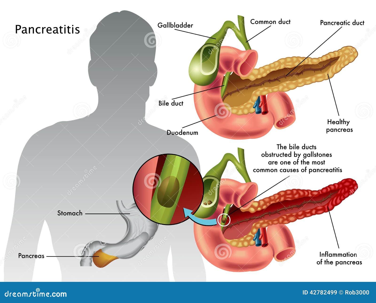 pancreatitis - photo #8