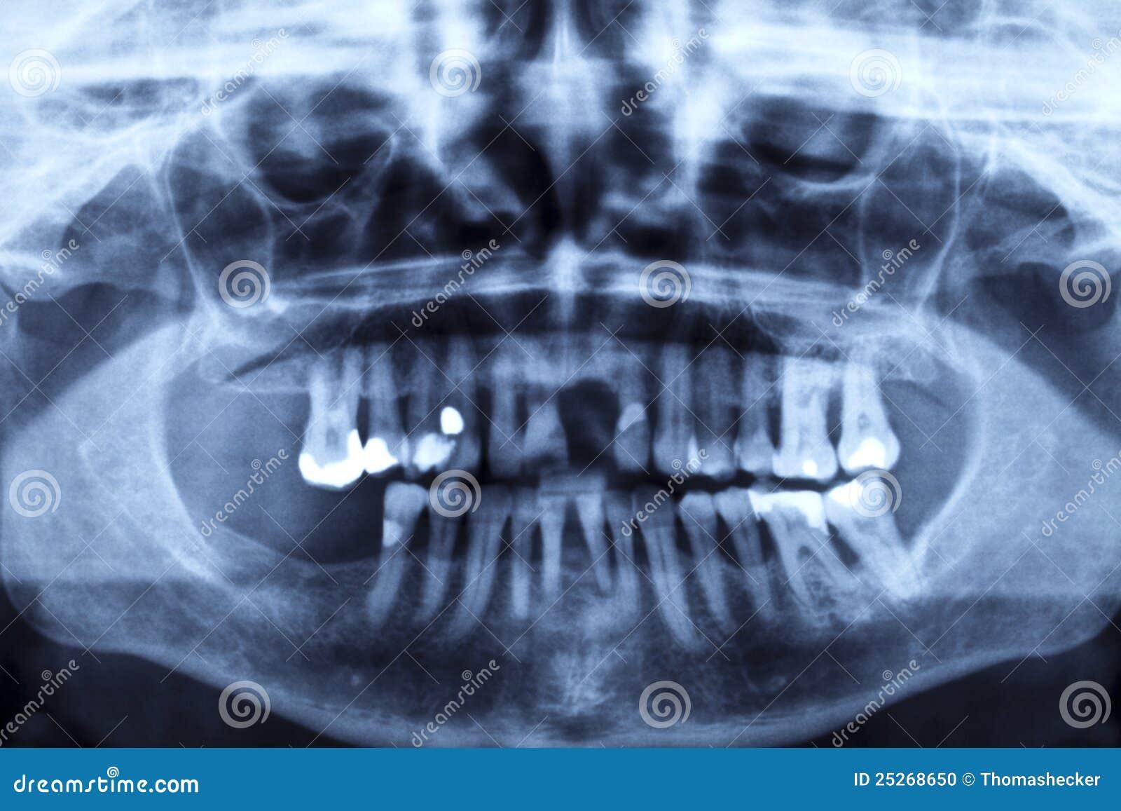 Panorama X-ray Image Of A Human Jaw Stock Photo - Image of anatomy ...