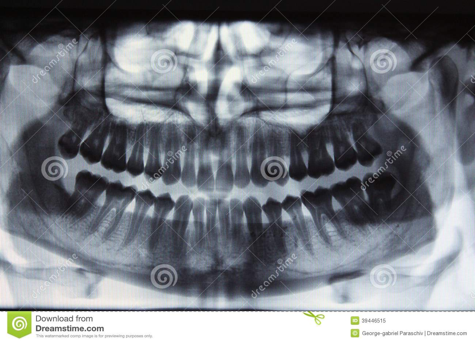 Panorama- tand- röntgenstråle - en miss för vishettänder
