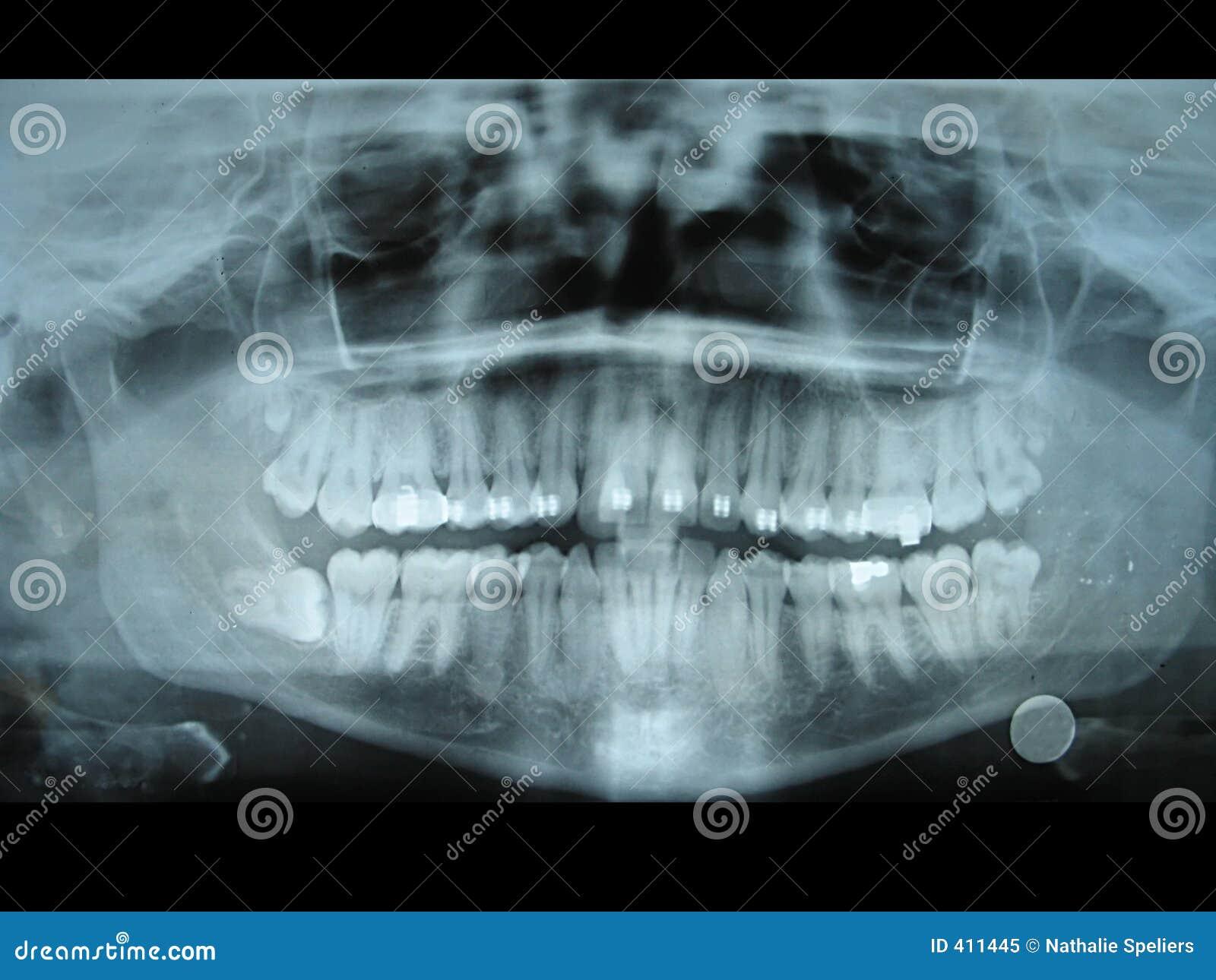 Panoramic Dental Radiology Slide Royalty Free Stock Photo - Image ...