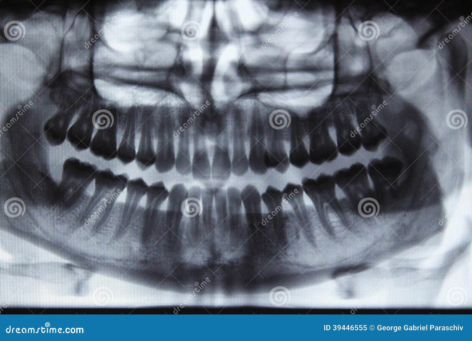 Panoramic dental X-ray stock image. Image of health, anatomy - 39446555
