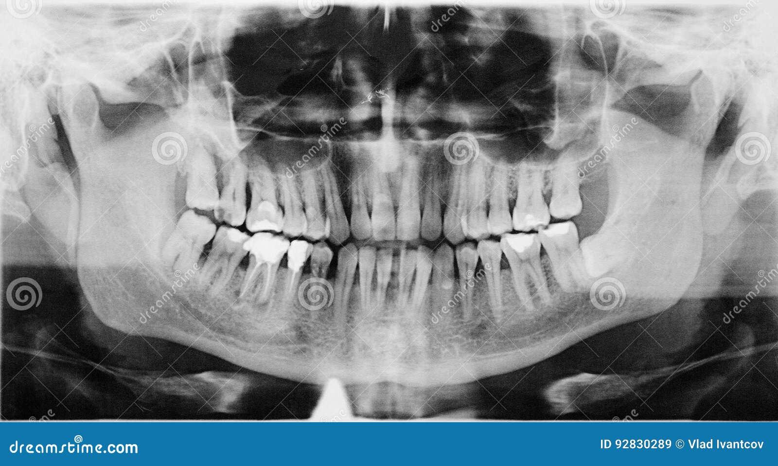 Panoramic dental X-Ray. stock image. Image of anatomy - 92830289