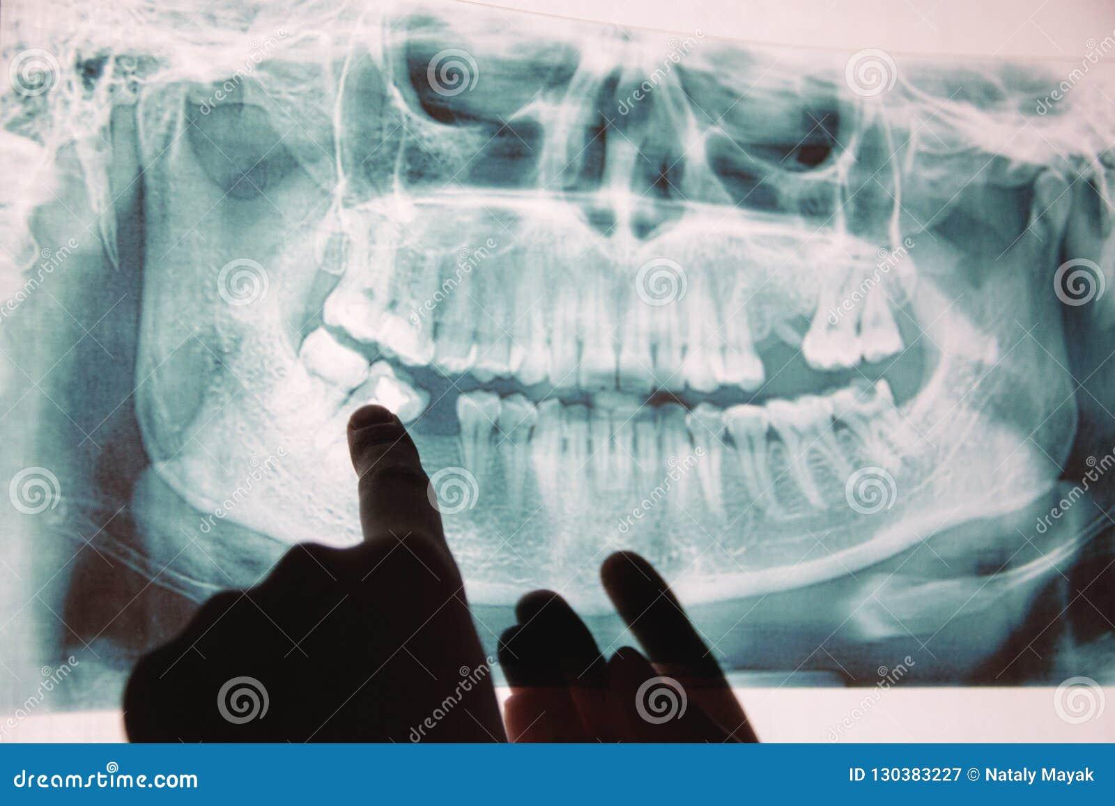 Panoramisch x-ray beeld van tanden Sommige verwijderde tanden, probleem met tanden