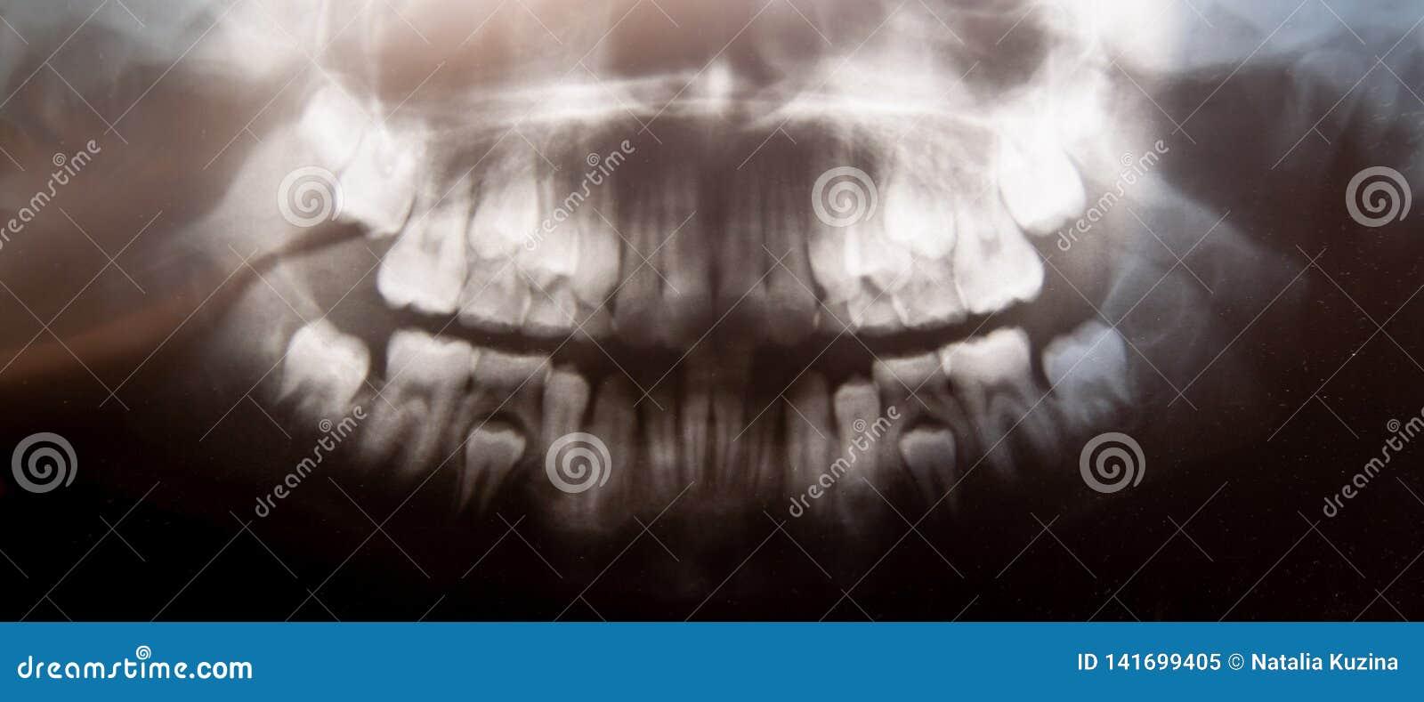 Panoramischer zahnmedizinischer Röntgenstrahl des Kinderfotos mit den Milchzähnen und den Viererzähnen Selektiver Fokus Gesundhei