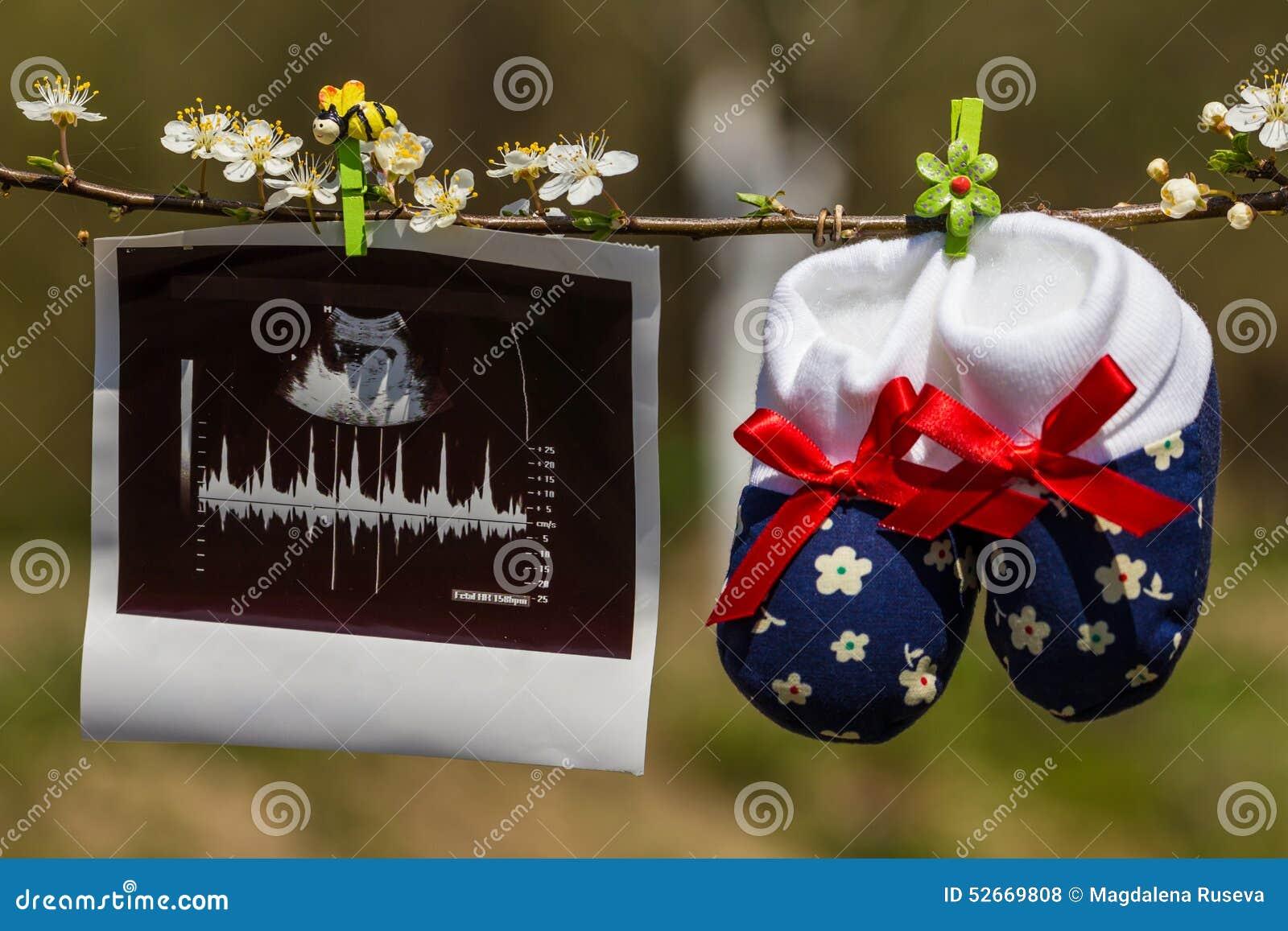Pantoufles de bébé et image d ultrason