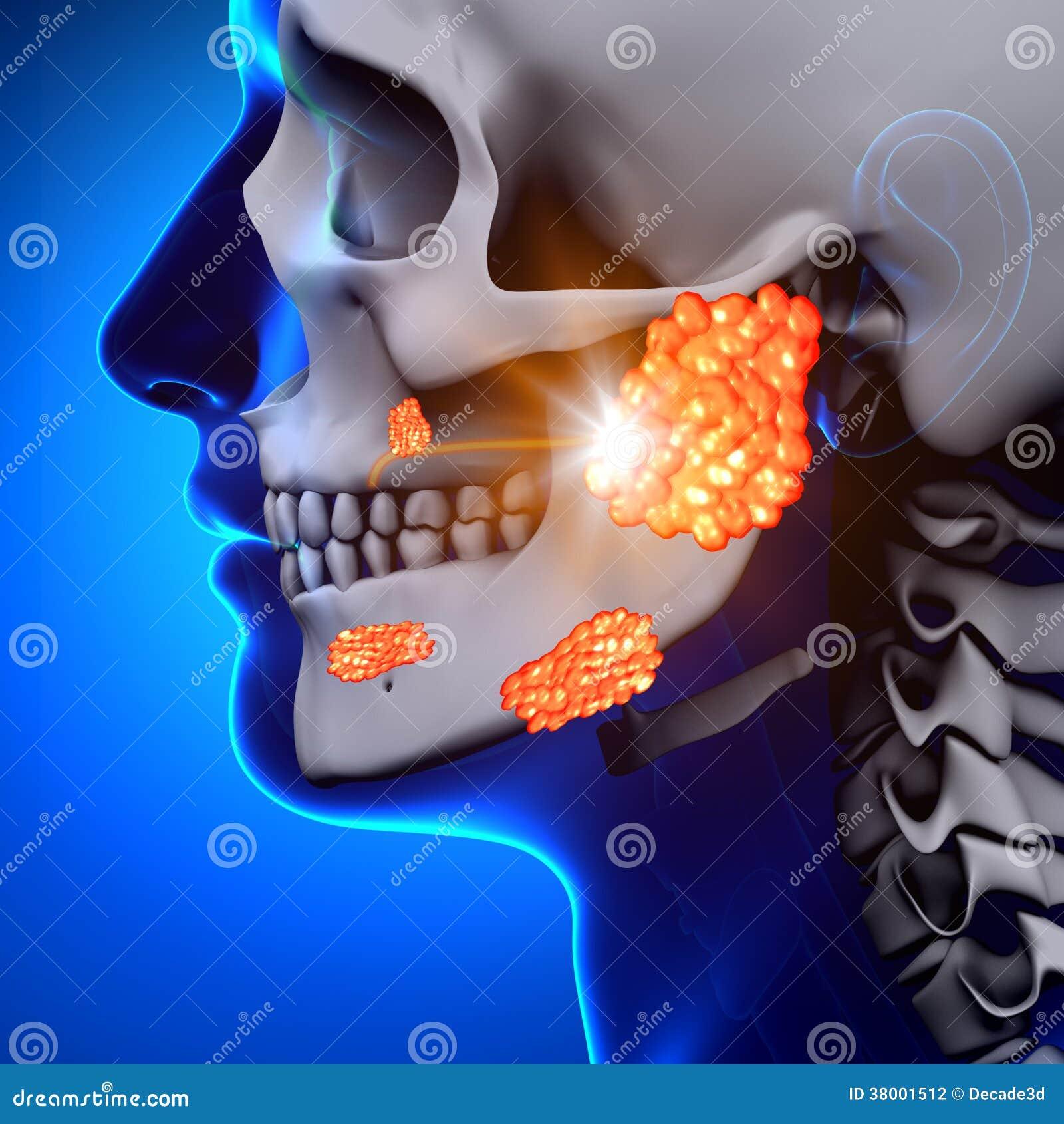 Papeira/glândula de Parotid - doença