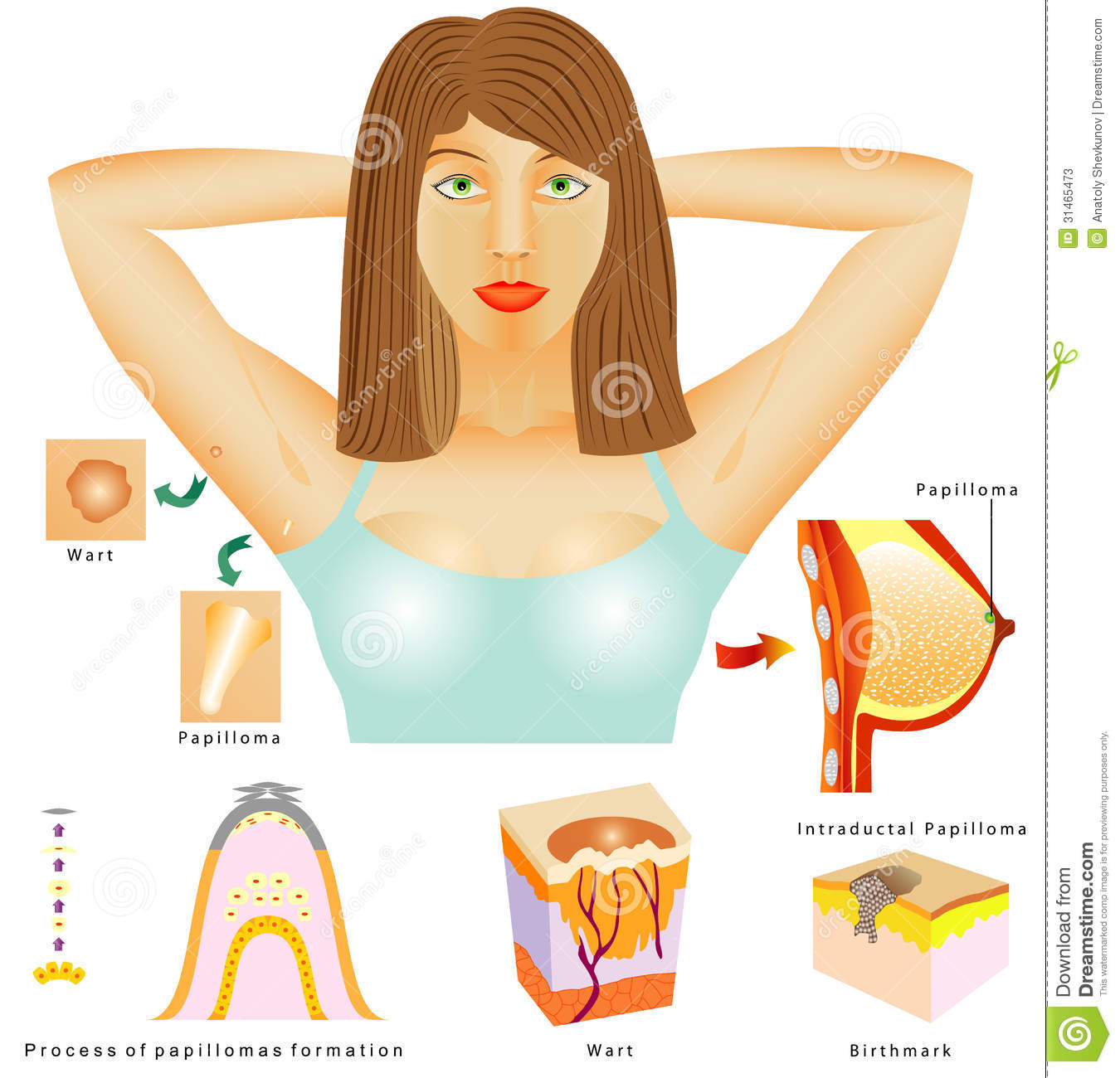 Stock Photos Papilloma Human Virus Hpv Hpv Causative Agent Warts Birthmarks Skin Wart Intraductal Image31465473 besides Acne Vulgaris 5279 together with Laser Removal moreover Endothelium additionally Circulation Of Blood Vector 97672. on circulatory system process