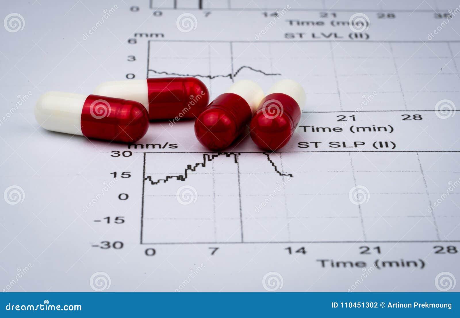 Papper för rapport för EKG- eller ECG-elektrokardiogramgraf EST övar preventivpillerar för kapsel för stresstestresultat och röd-