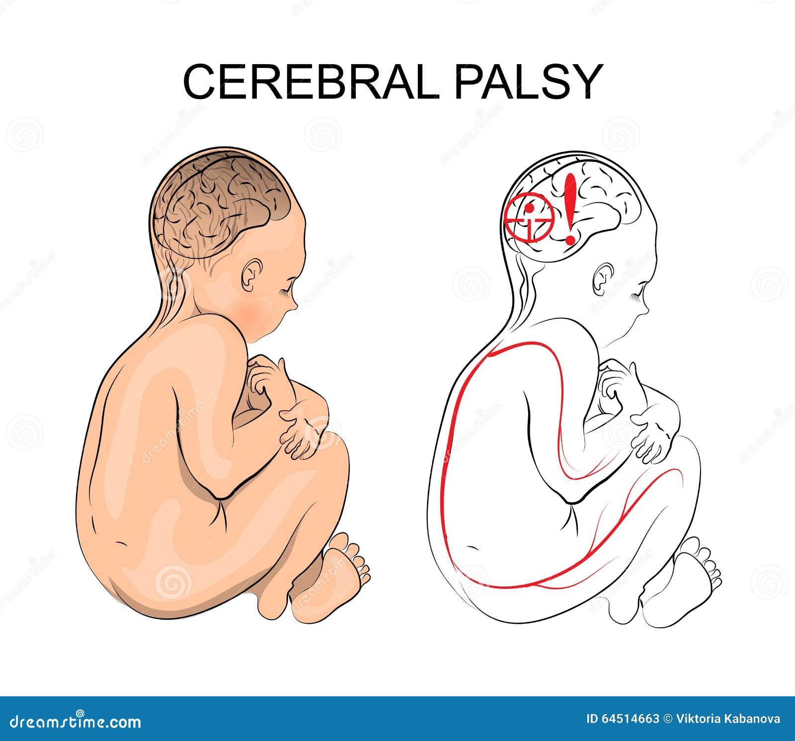 Parálisis Cerebral Neurología Ilustración del Vector - Ilustración ...