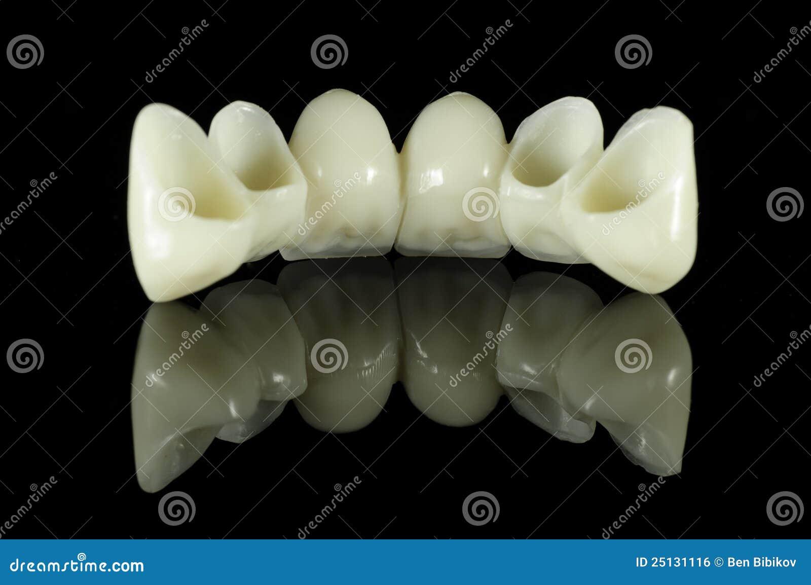 Para trás da ponte do dente