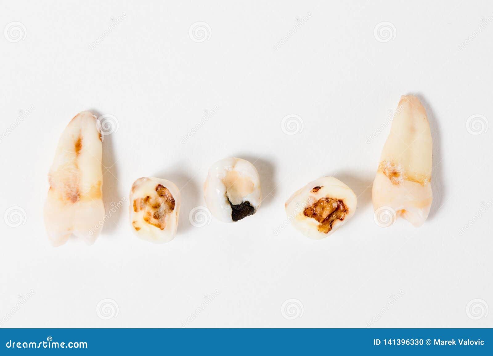 Paradise para o negócio do dentista - continua o dente mal limpado