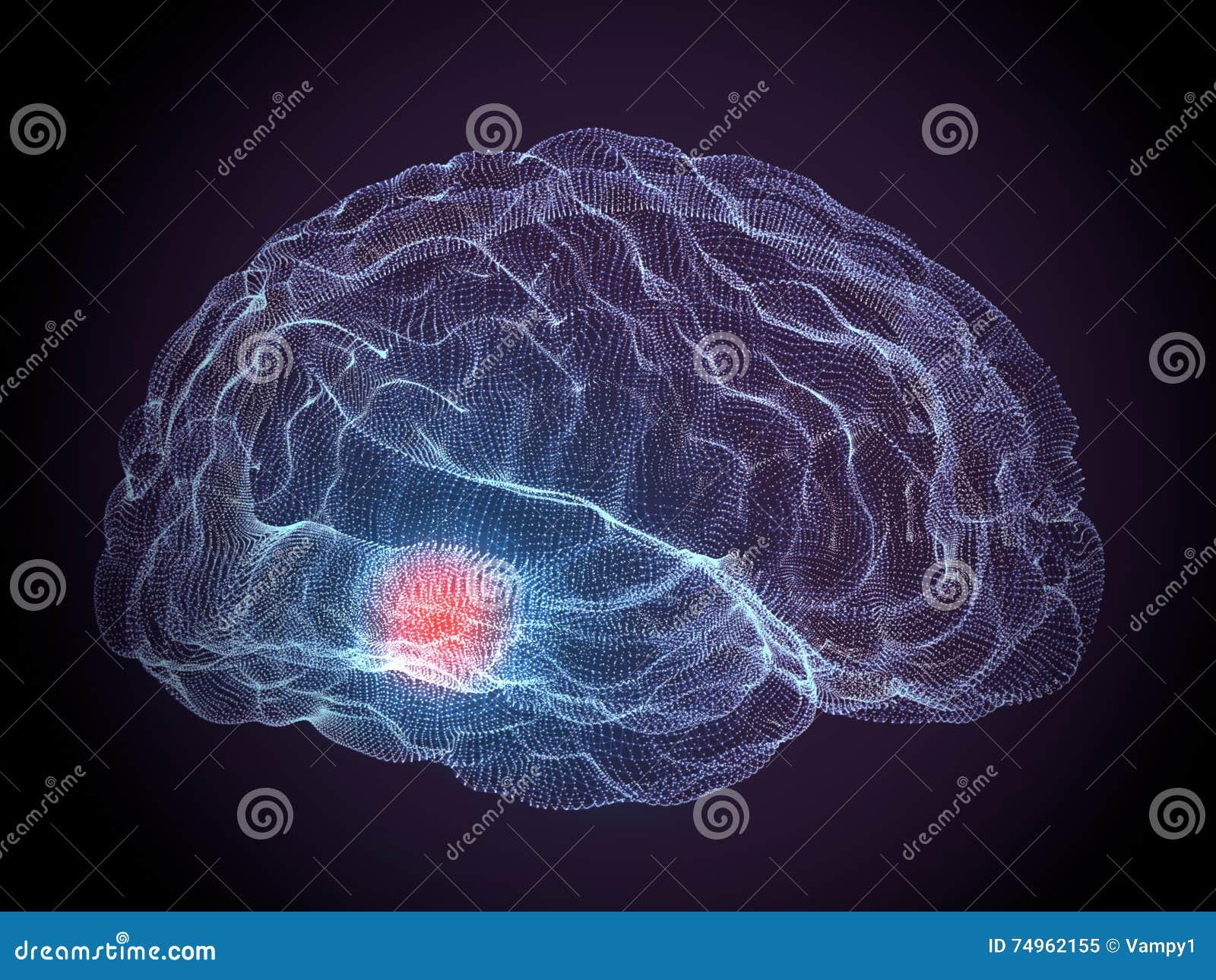 Parkinson degenerative brain diseases