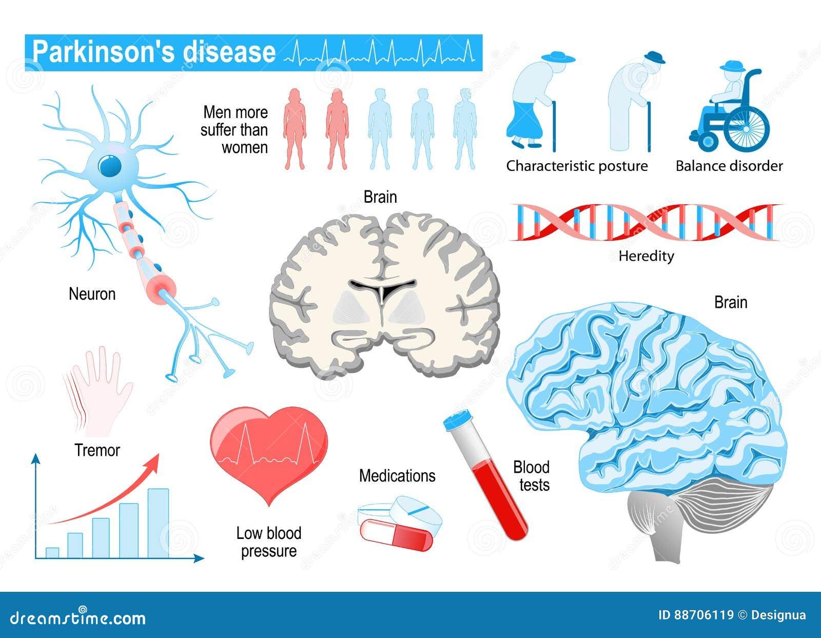 Parkinson`s disease. Elderly people. diseases, disorders and oth