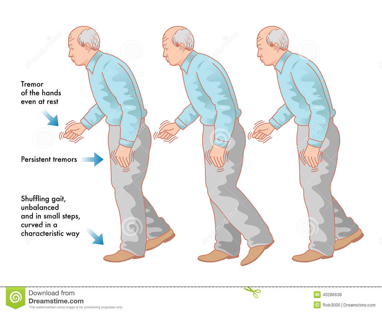 parkinson's disease Parkinson's disease (shaking palsy) - clinical presentation and pathophysiology - duration: 13:53 armando hasudungan 182,829 views 13:53.