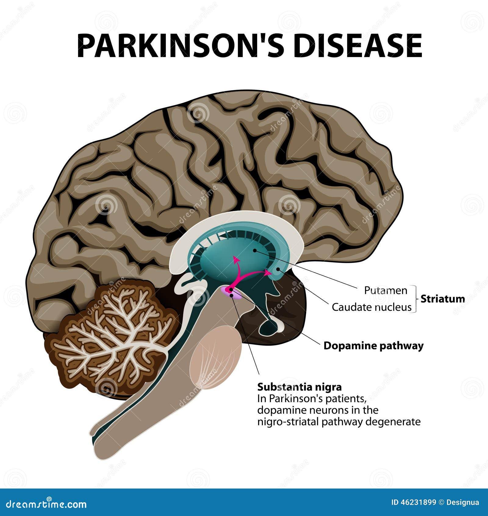 Parkinsons-Krankheit