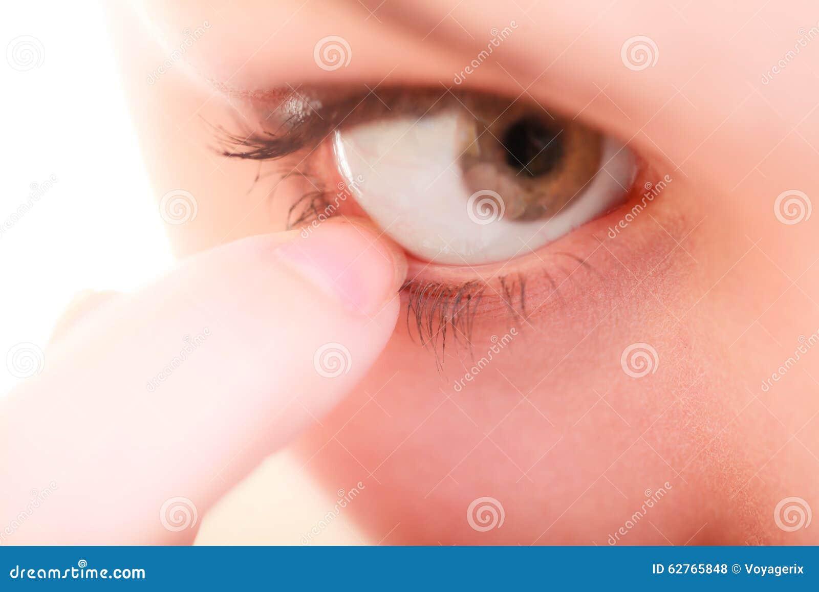 cuerpo extraño ojos