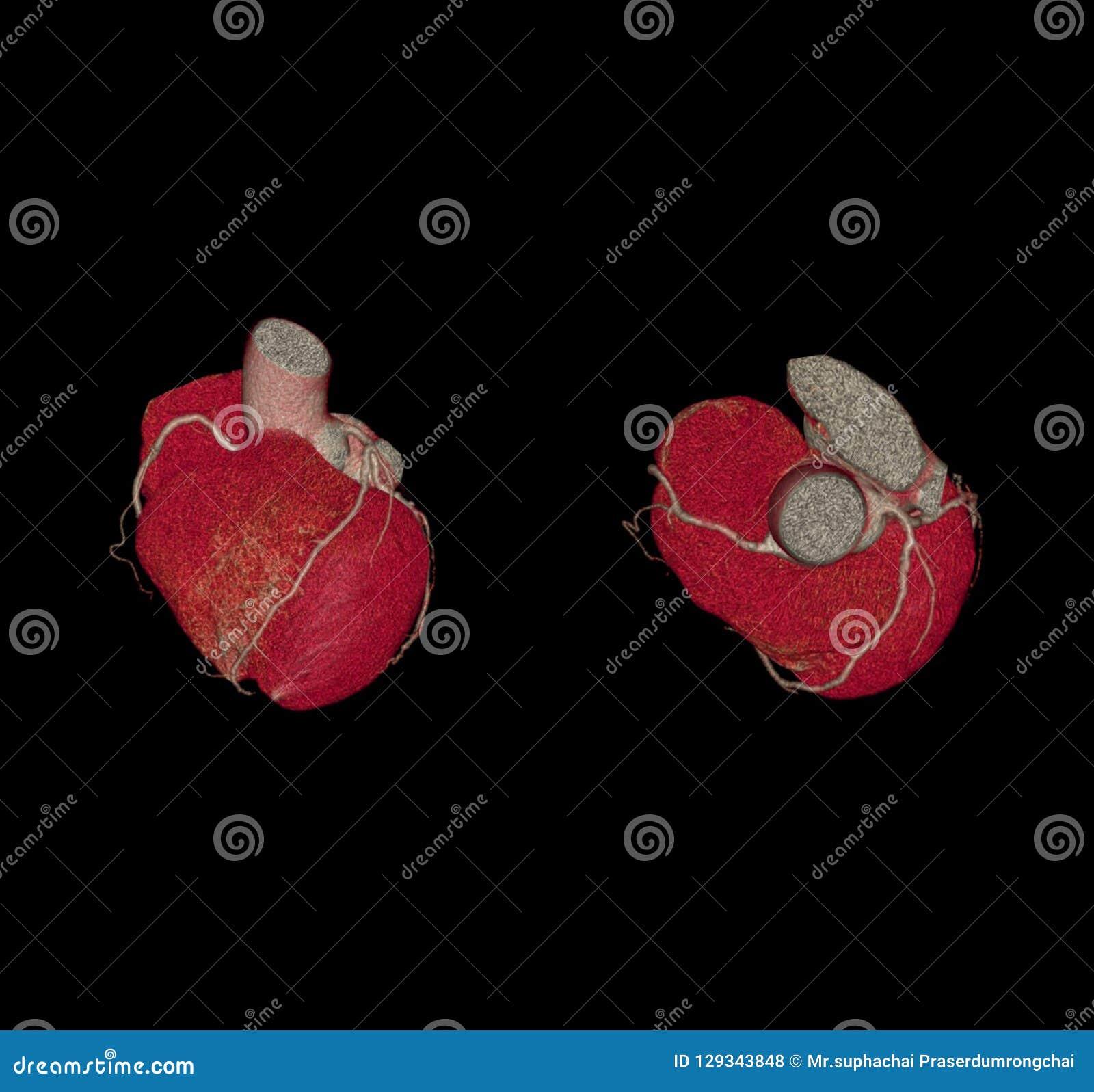 Parte dianteira e ideia superior da imagem da rendição da artéria coronária 3D de CTA