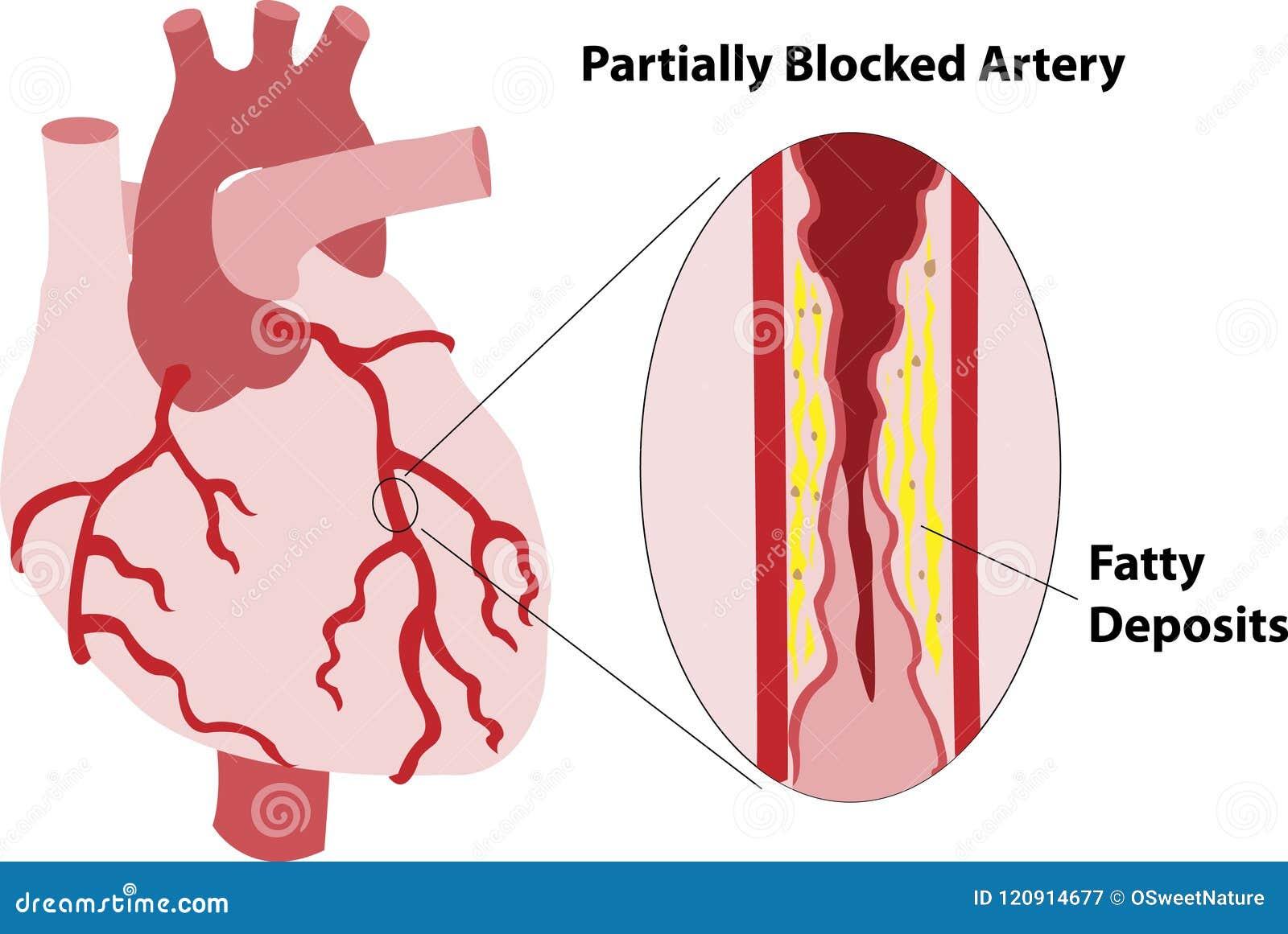 Partially Blocked Coronary Artery Stock Image Illustration