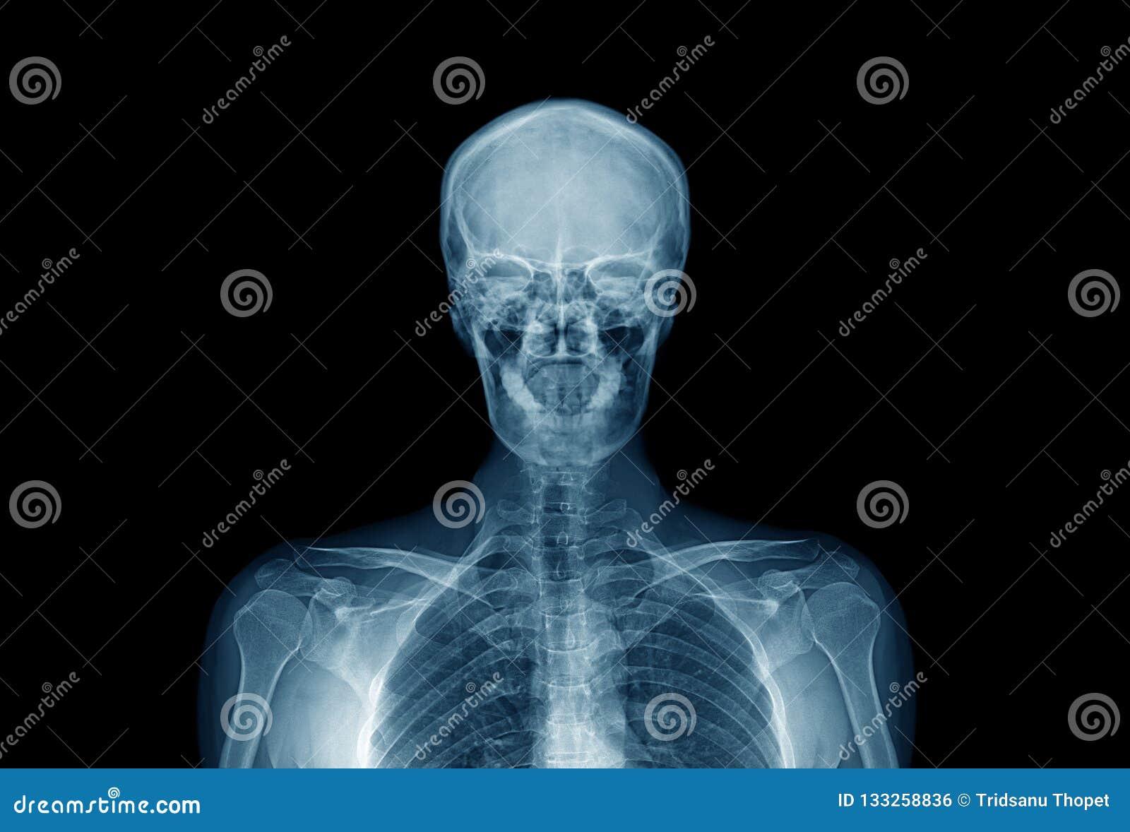 Partie supérieure de corps humain, image de rayon X de qualité de taille d humain dedans