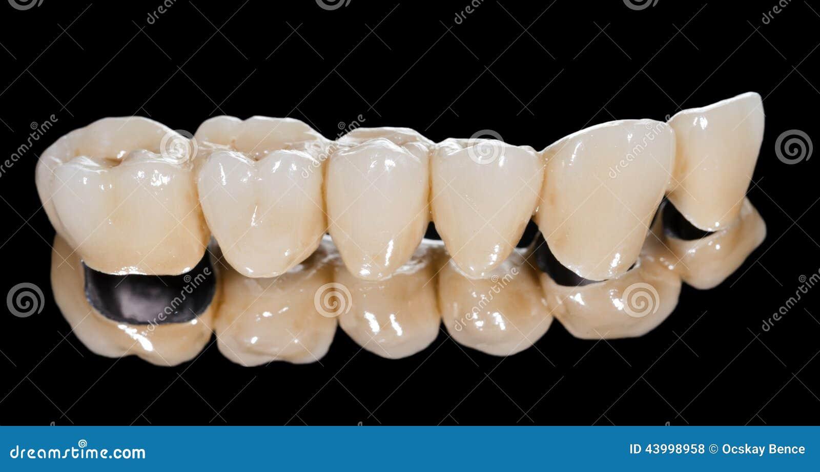 Passerelle en céramique dentaire