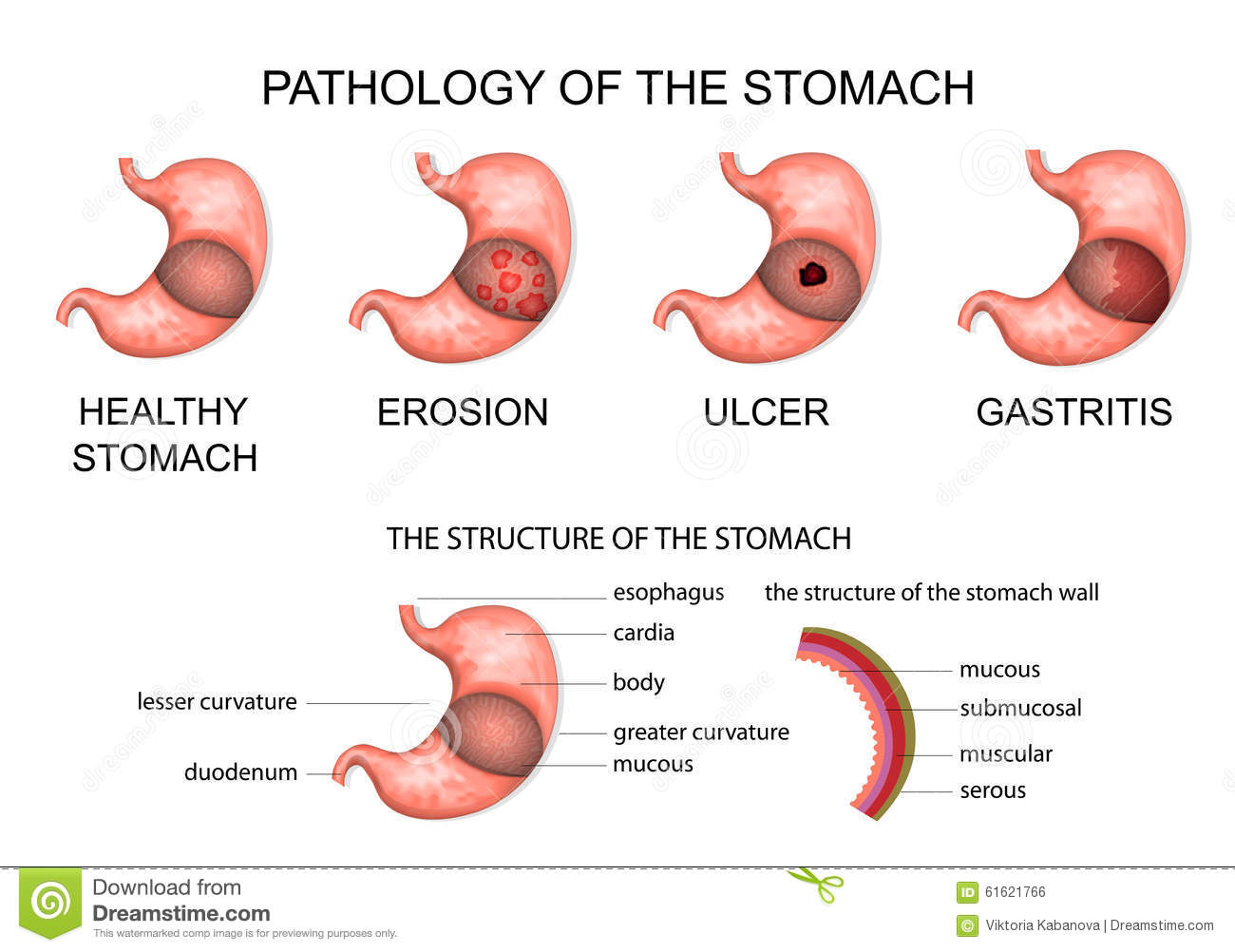 Stomach Erosion Stock Illustrations – 115 Stomach Erosion Stock  Illustrations, Vectors & Clipart - Dreamstime