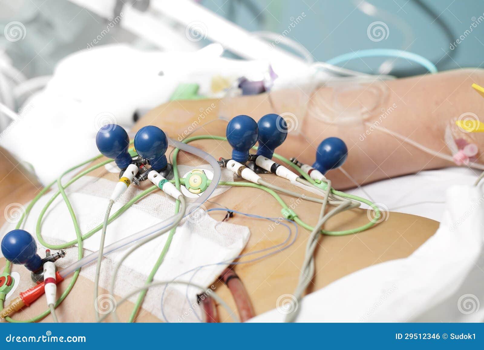 Patiënt in medische draden.