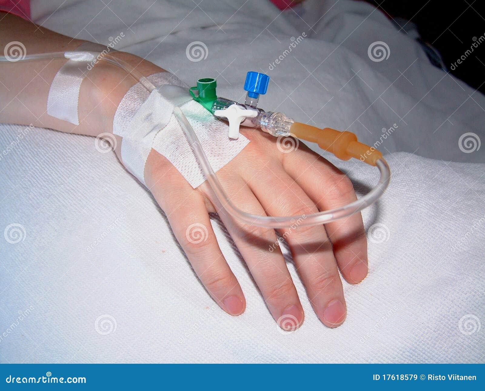 препарата катеторы на руках фото анекдоты про