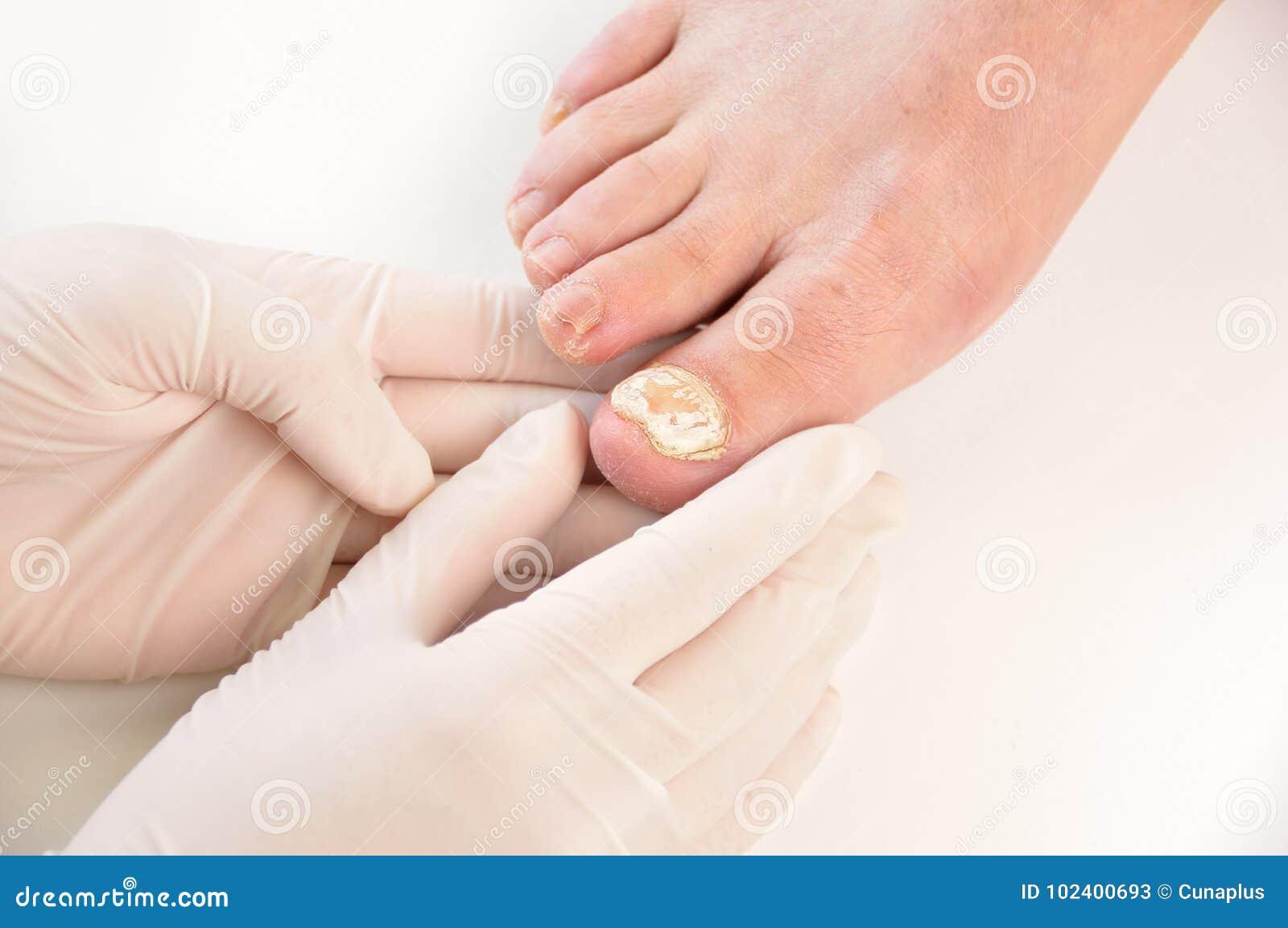 Paziente d esame della podologia