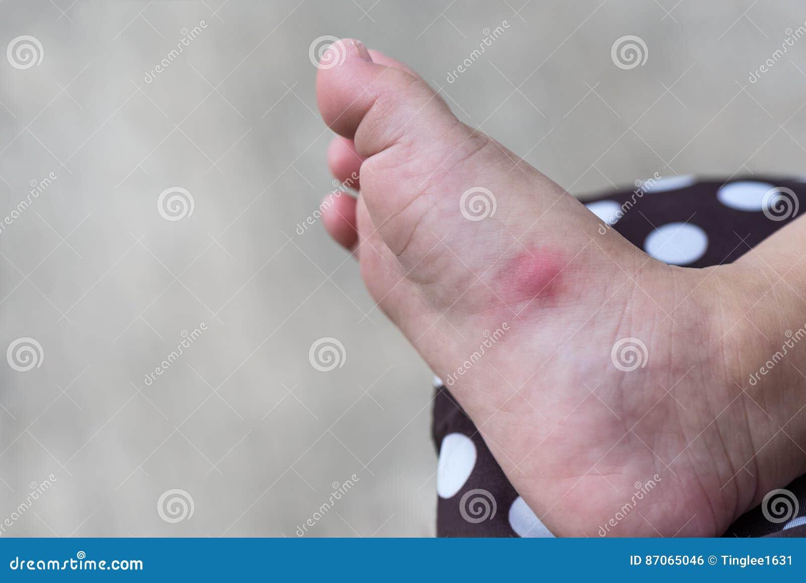 allergie au pied