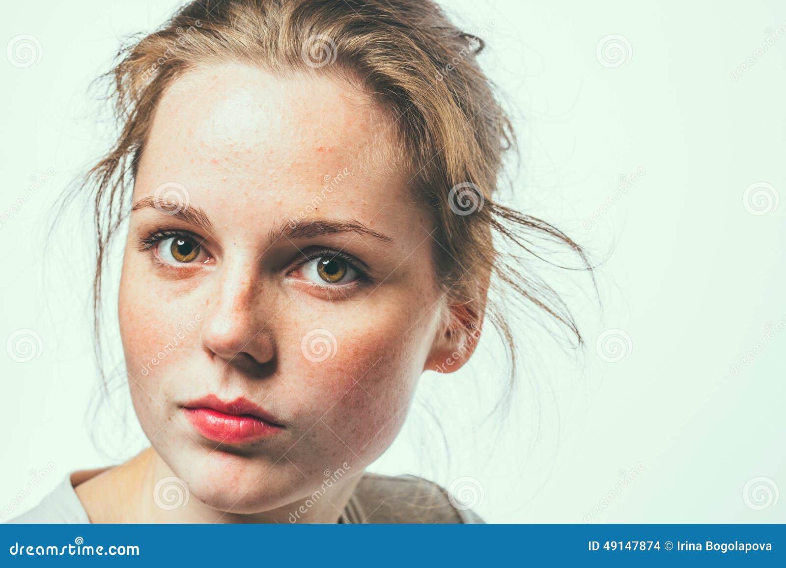 Las manchas blancas de pigmento sobre los genitales