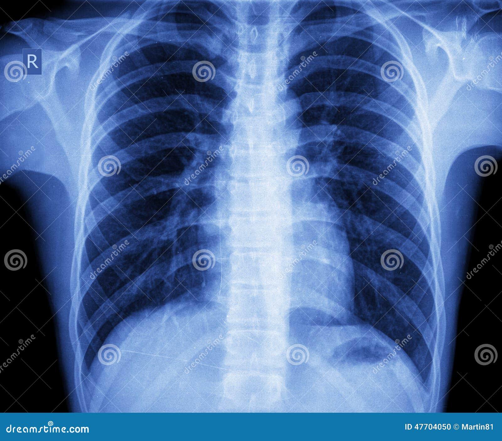 Pecho de la radiografía