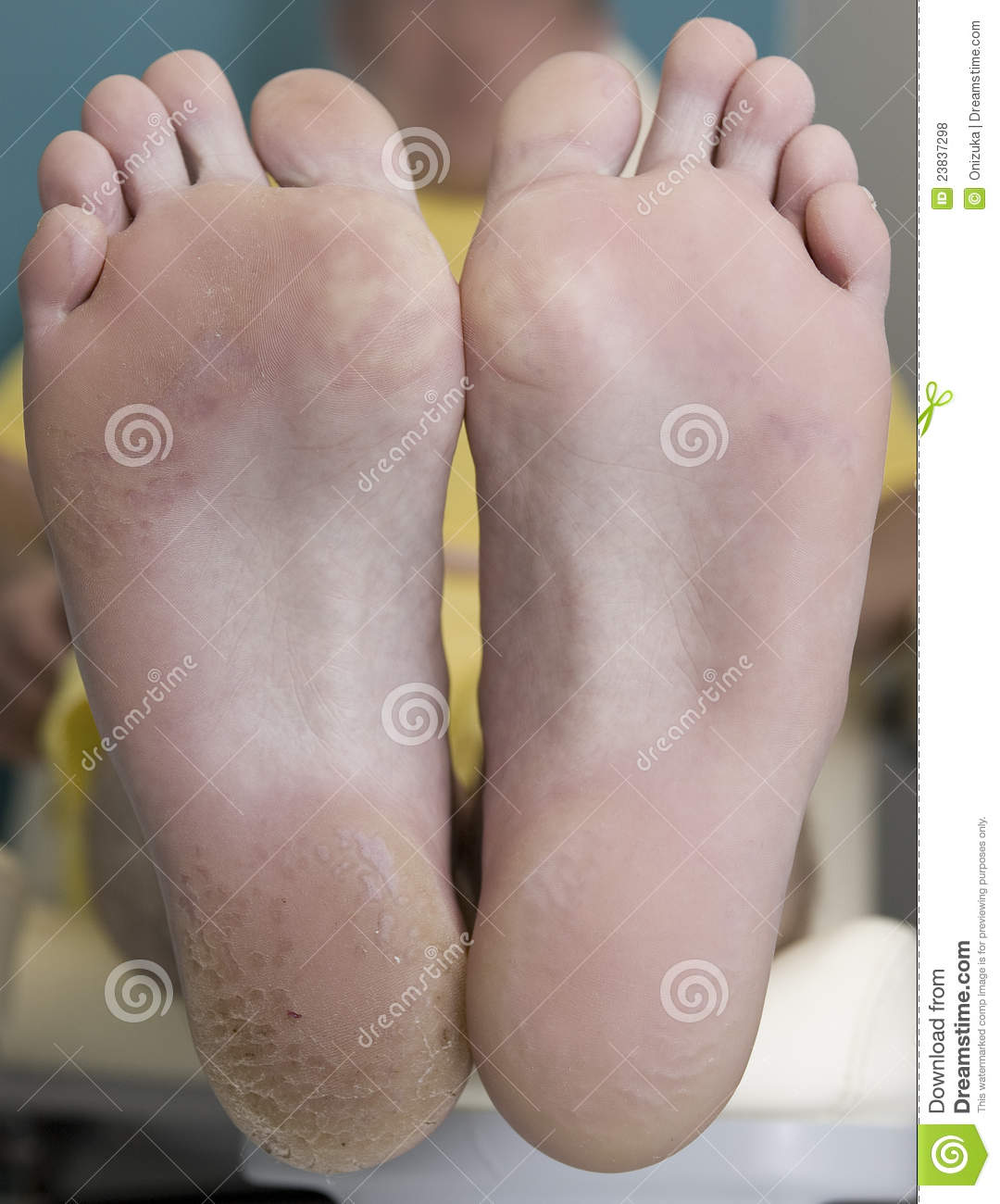 Pedicure before after stock photo image of white body for Fish pedicure price