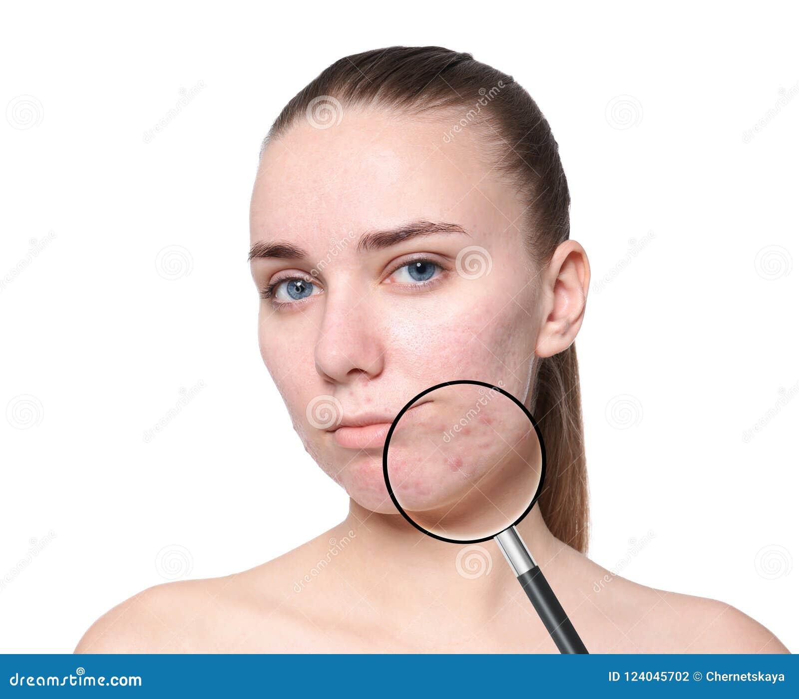 Pele de ampliação do ` s da jovem mulher com problema da acne