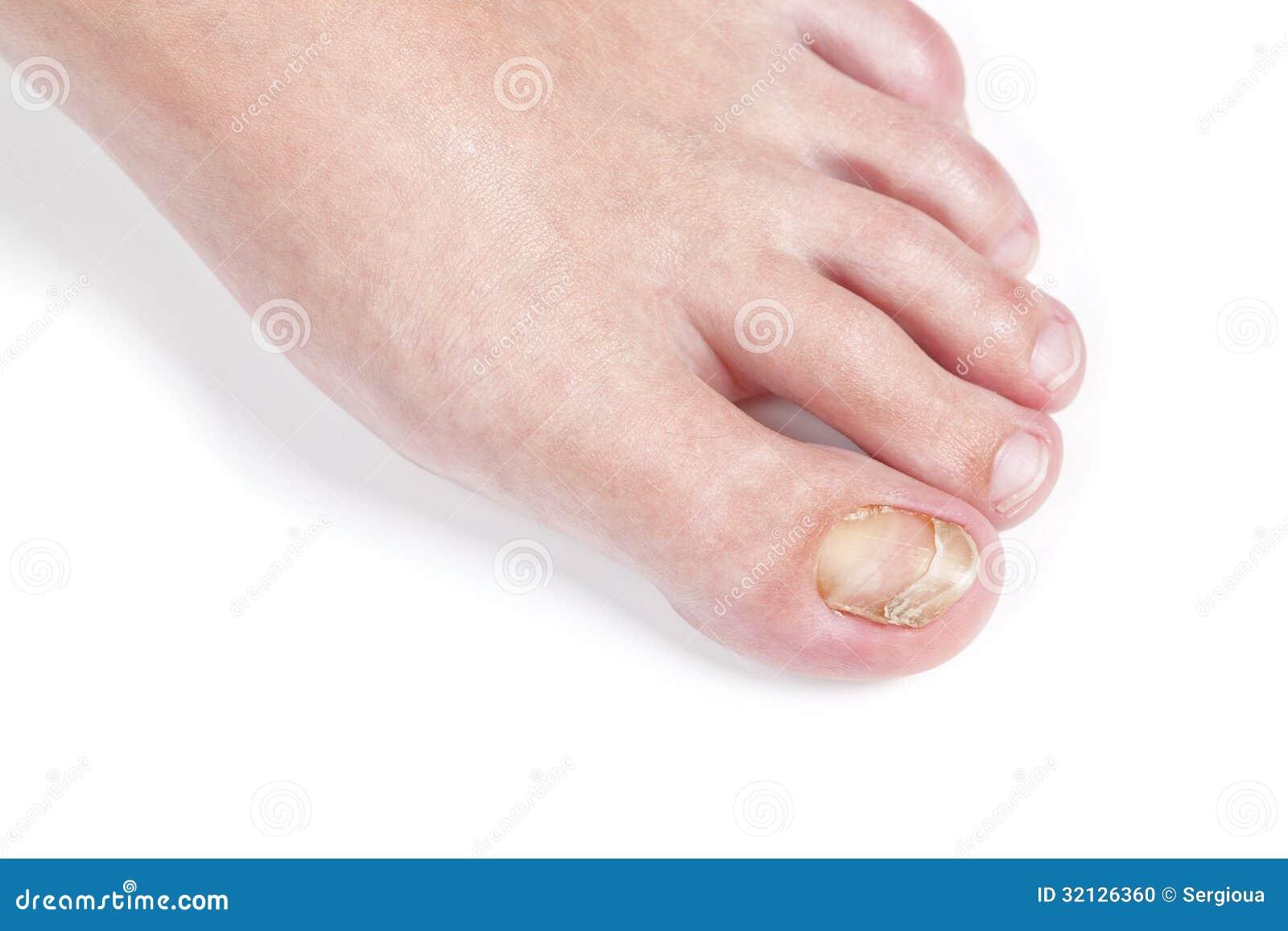 Los medios para el tratamiento del hongo bajo las uñas