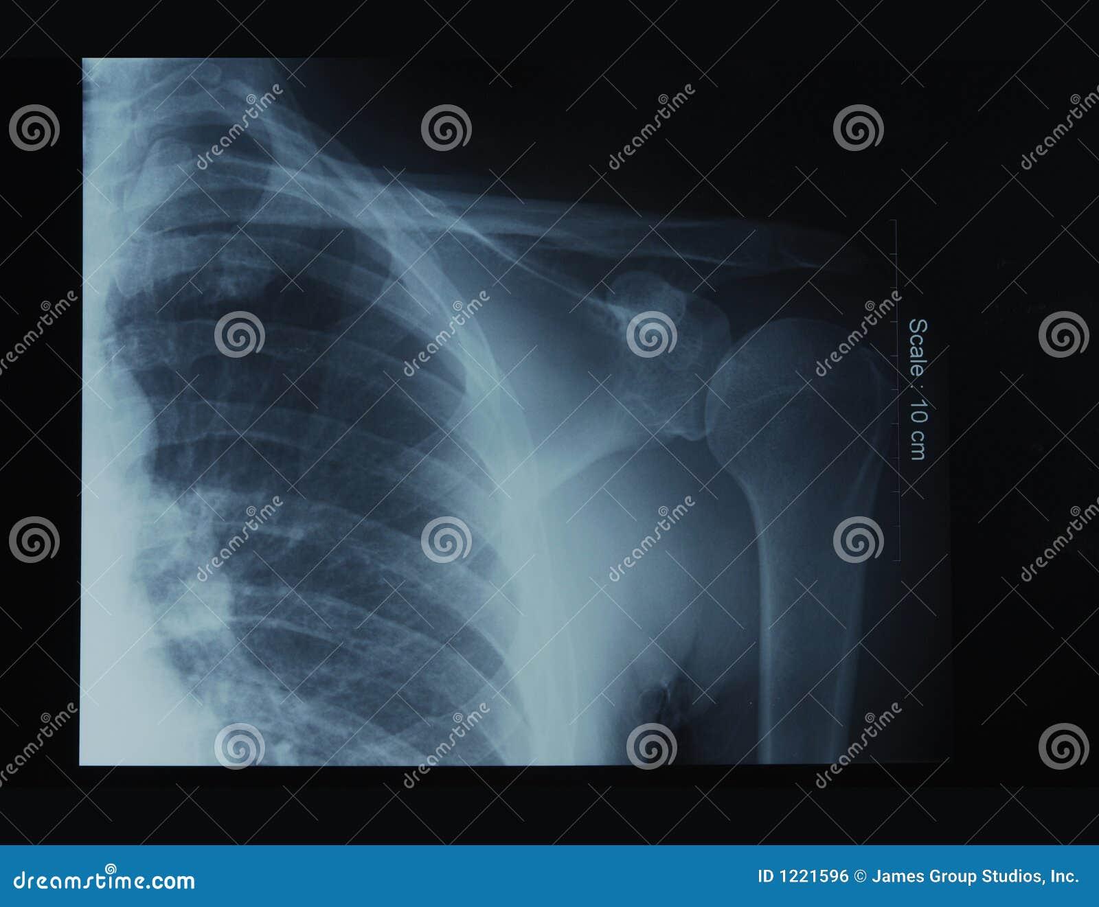 Pellicola di raggi X della spalla