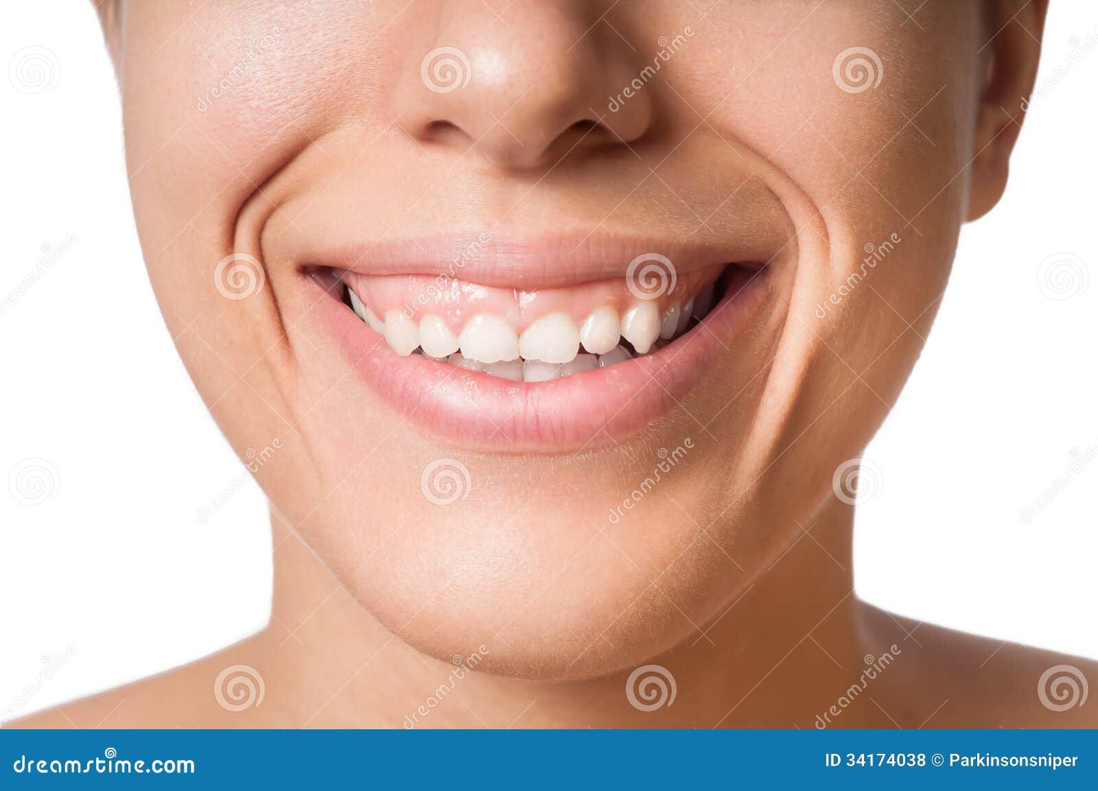 Pequeños dientes