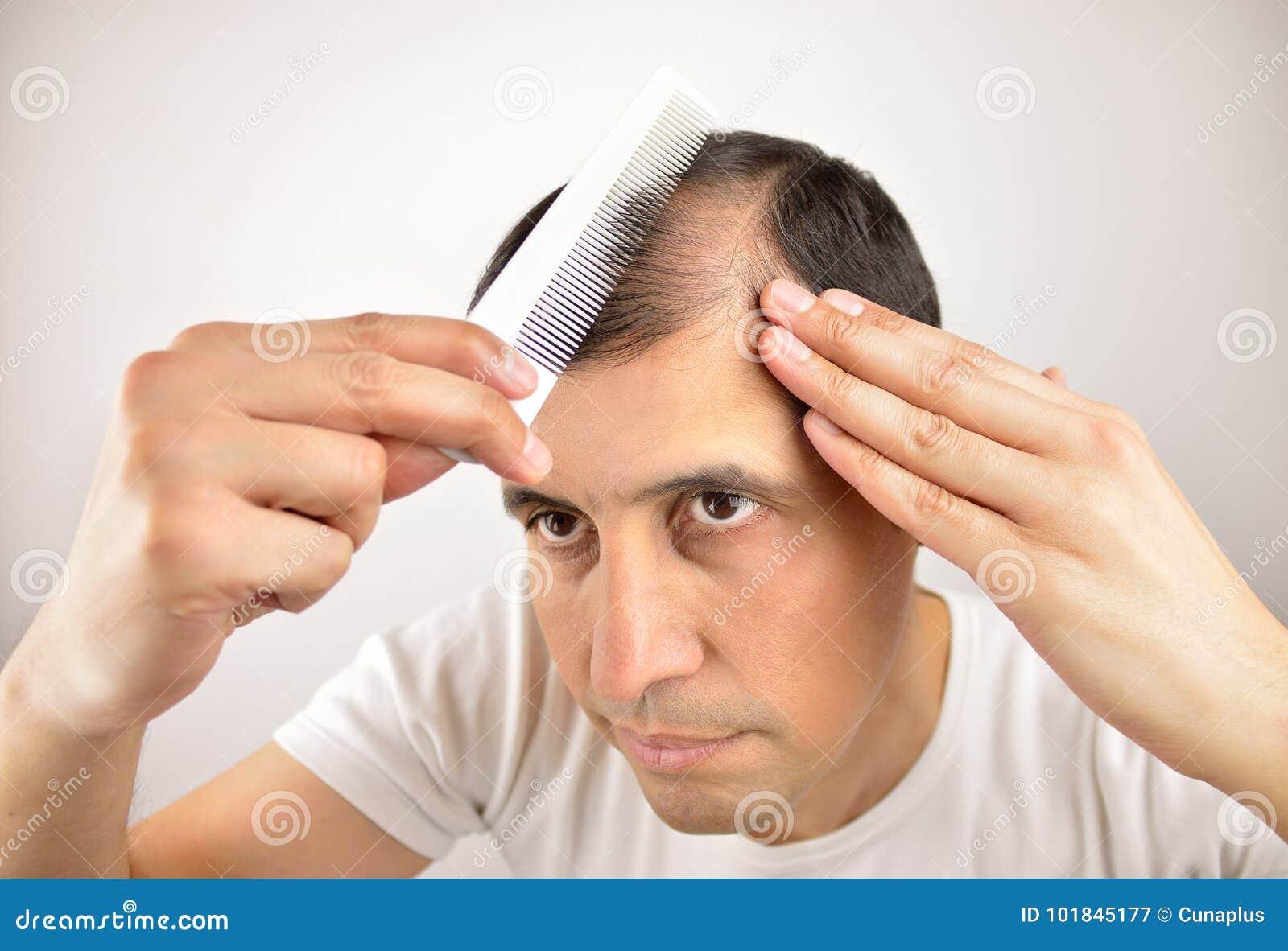 Perdita di capelli immagine stock. Immagine di ...