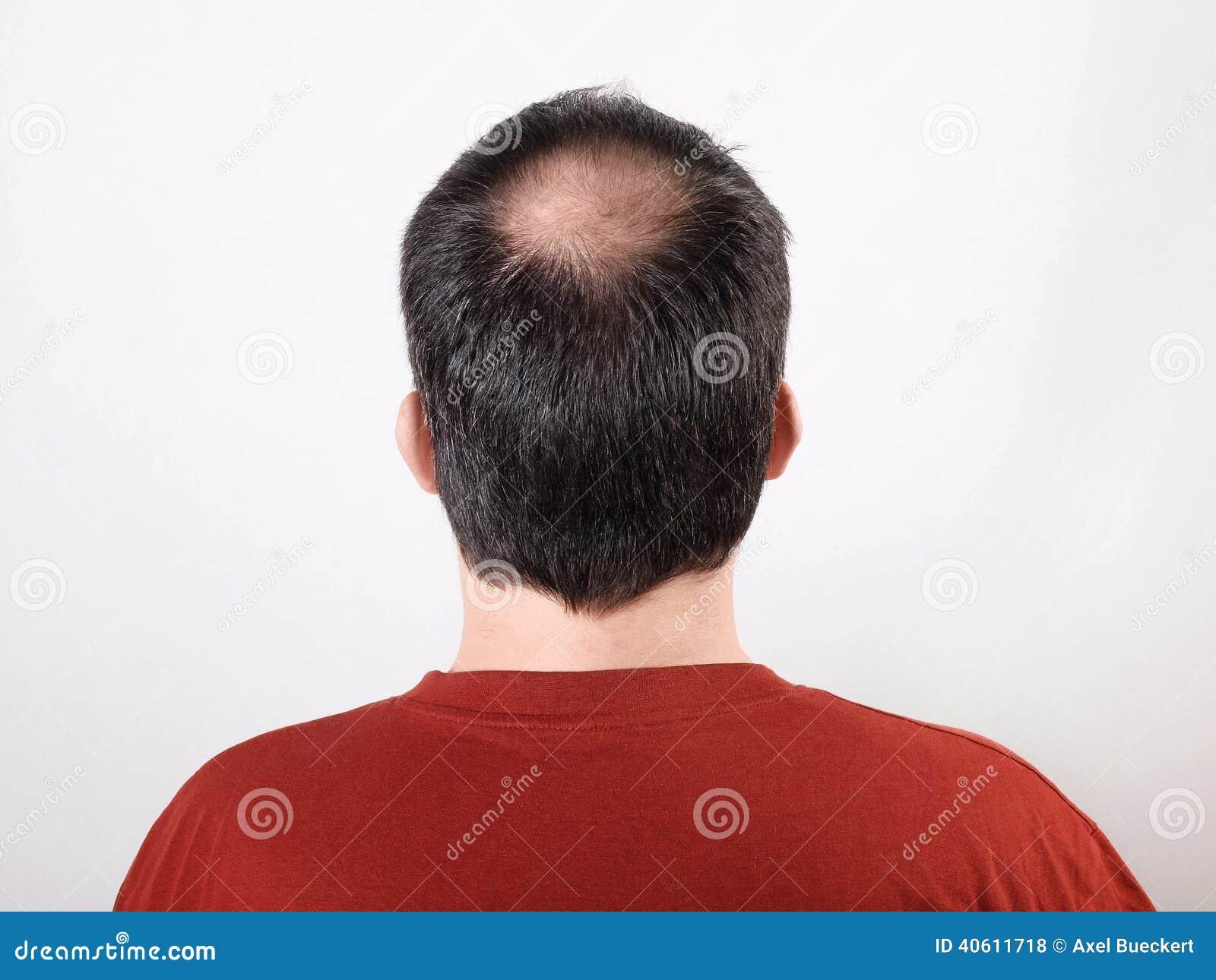 Perdita di capelli fotografia stock. Immagine di ...