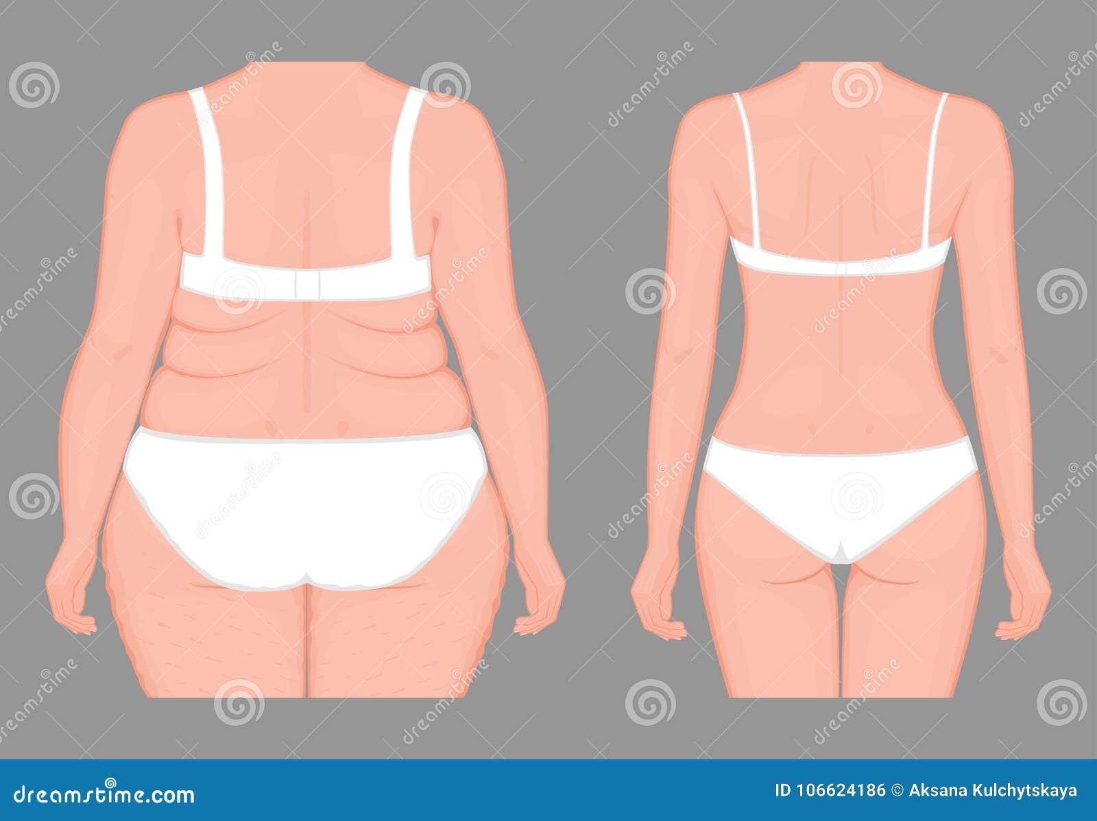 programmi di perdita di peso humana