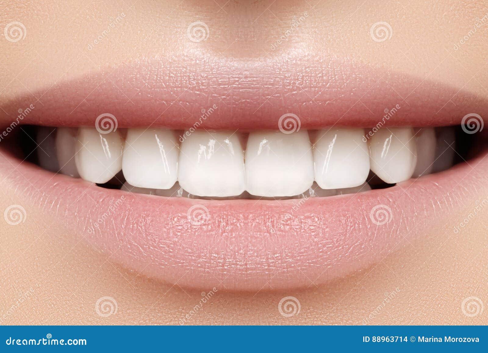 Perfeccione la sonrisa de la mujer hermosa joven, dientes blancos sanos perfectos El blanquear, ortodont, diente del cuidado y sa