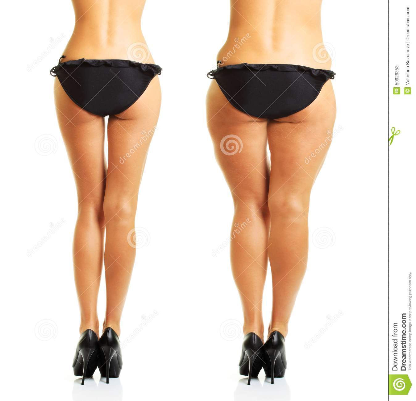 anorexia perfect body In the relatively short history of eating disorders treatment, the overwhelming   the body myth: adult women and the pressure to be perfect, margo maine,.