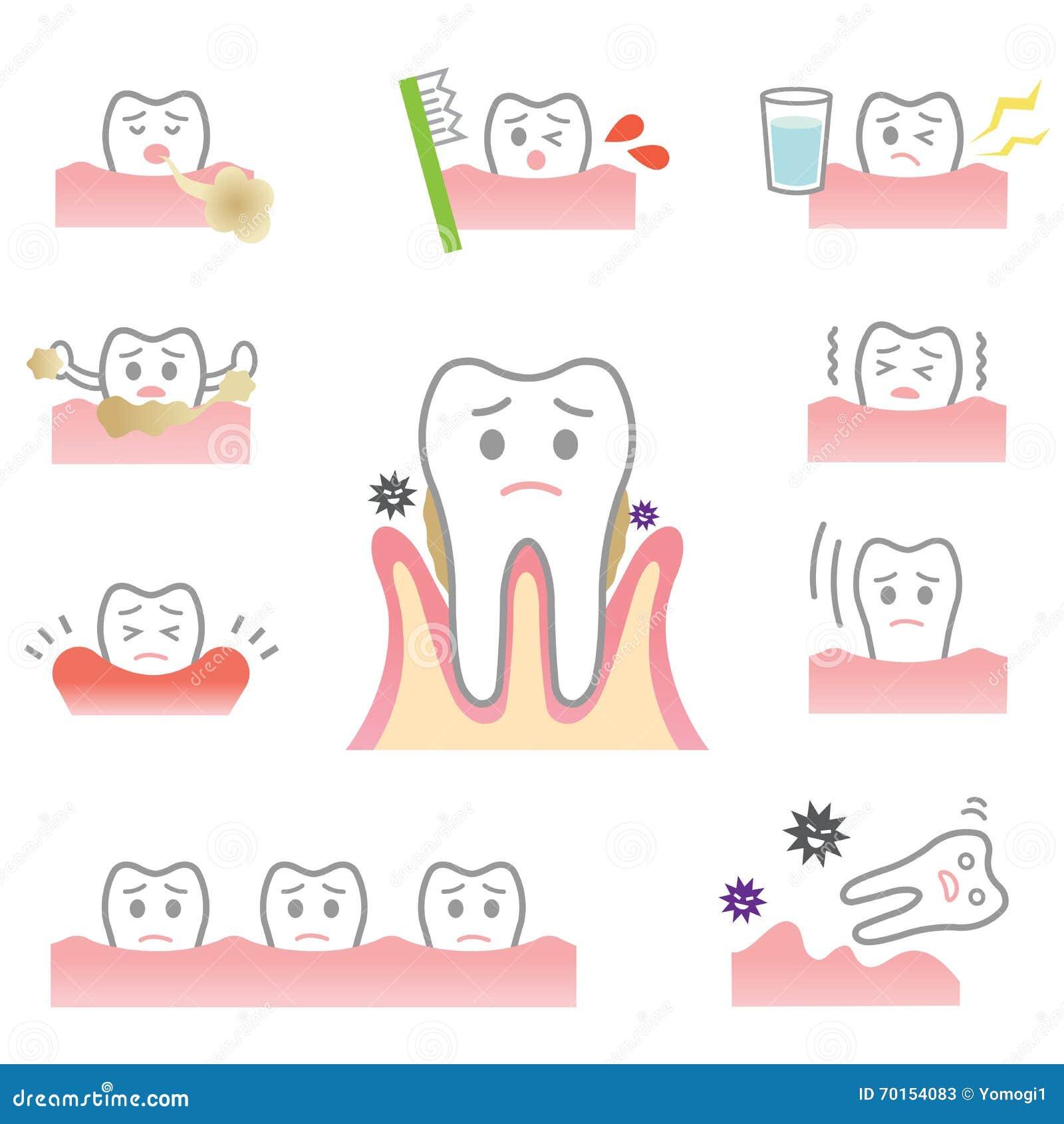 Periodontal Disease Stock Vector - Image: 70154083