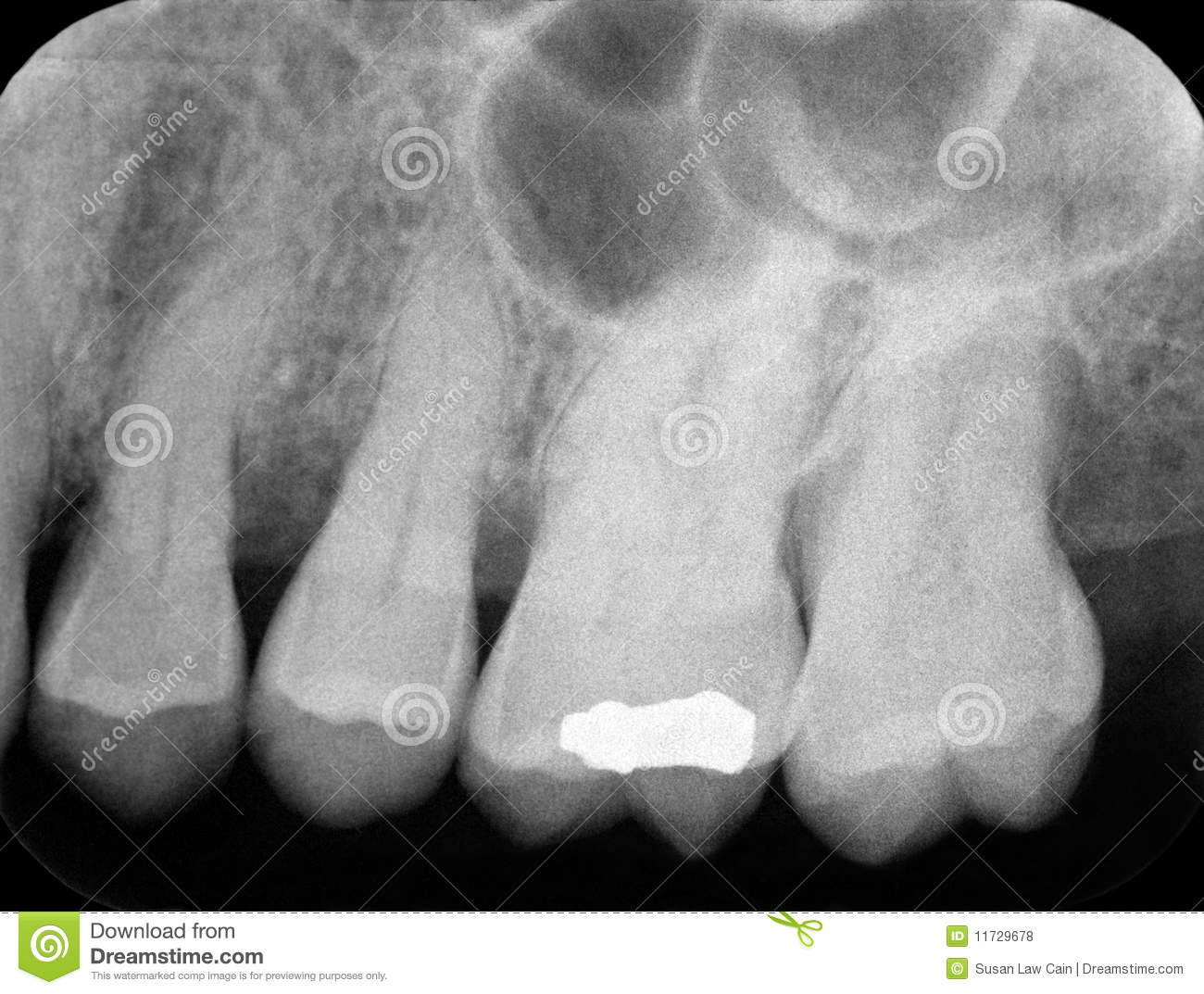Periodontal Ray Caries Periapical Of Teeth