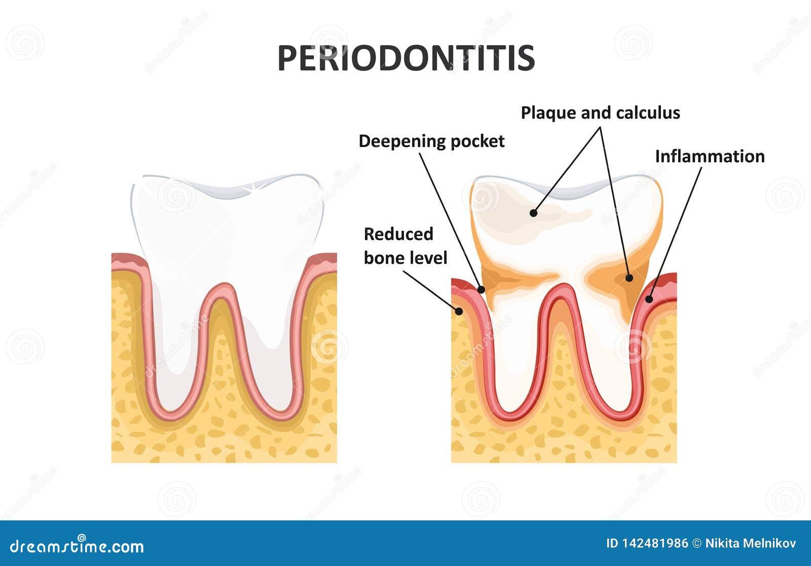 Periodontitis, οδοντική ασθένεια