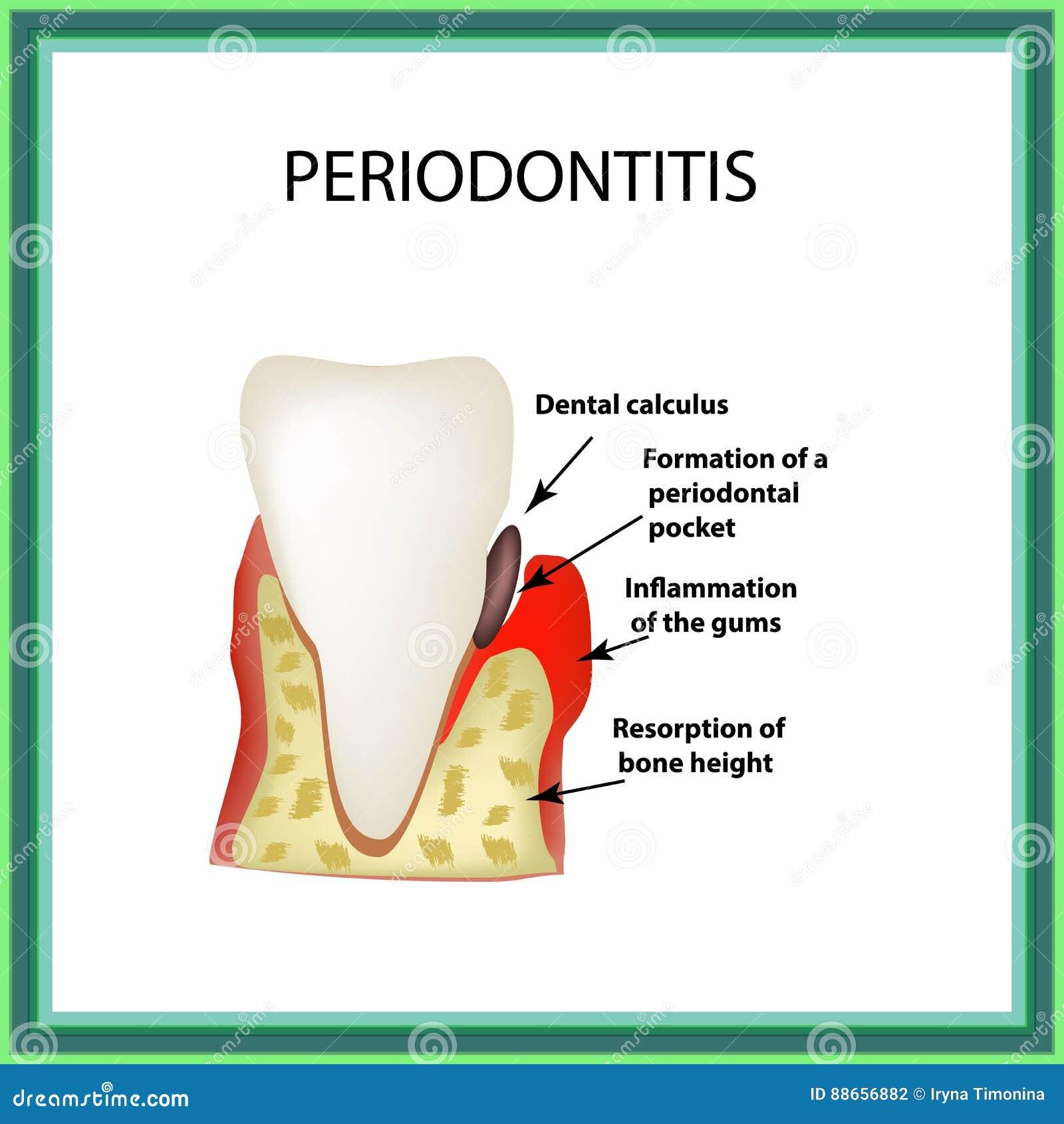 Periodontitis La maladie dentaire Inflammation des gommes et