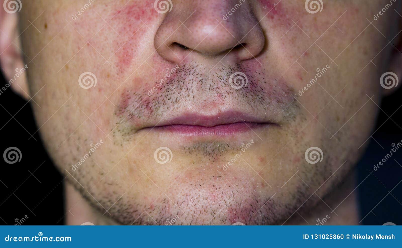 Perioral dermatitis - huidziekte op het gezicht