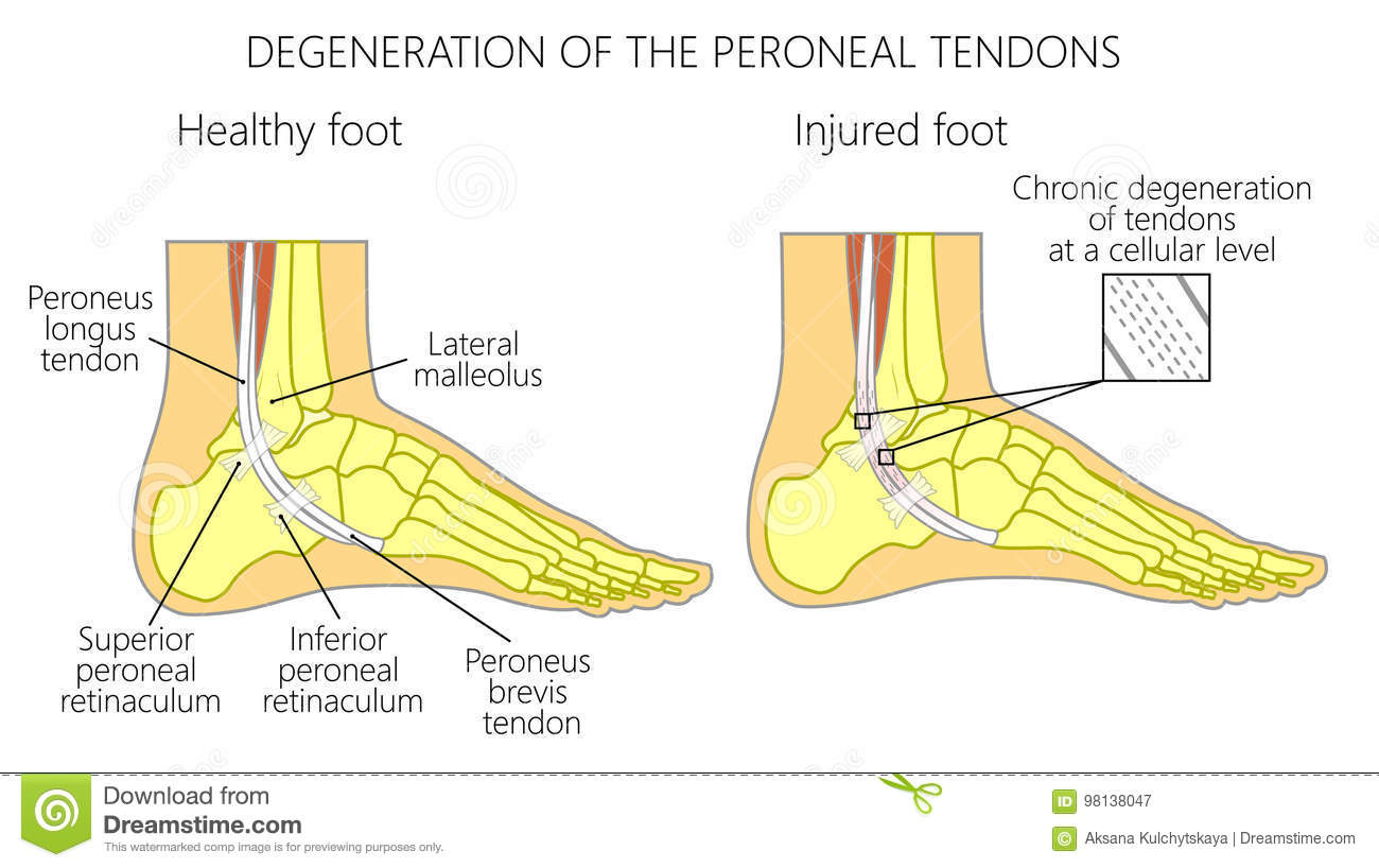 Peroneal Tendon Injuries_Degeneration Of The Peroneus Longus And ...