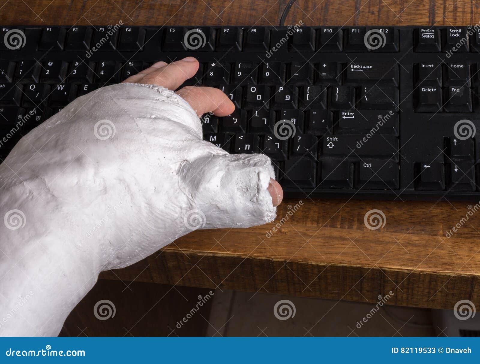 Person Mit Dem Arm Warf Das Schreiben Auf Einer Tastatur Stockbild